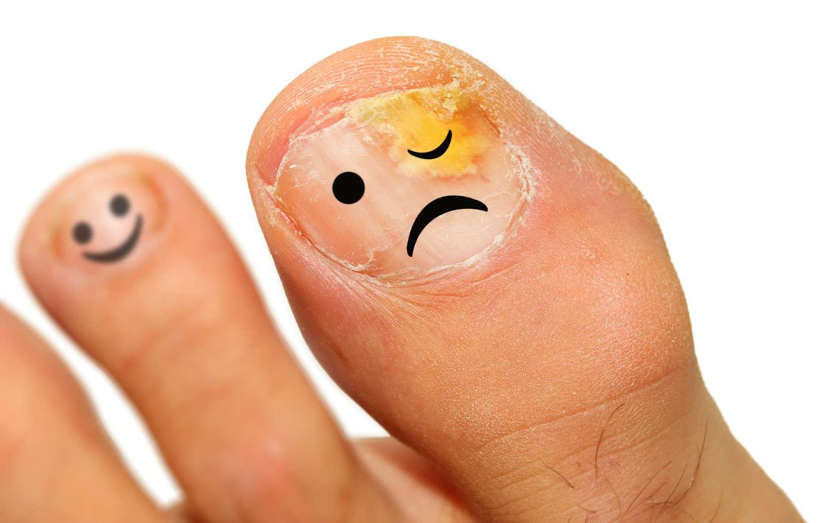 L'onychomycose est une mycose de l'ongle qui touche le plus souvent les pieds. © Kletr, Fotolia