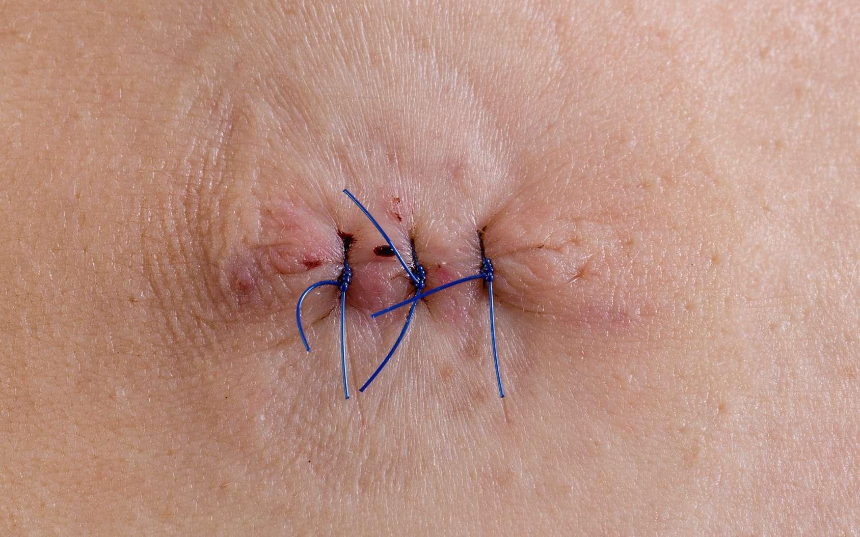De nos jours, les points de suture sont utilisés pour réparer une blessure profonde. Des chercheurs proposent des alternatives, mais les points de suture seront toujours parfois nécessaires. © bmf-foto.de, Fotolia