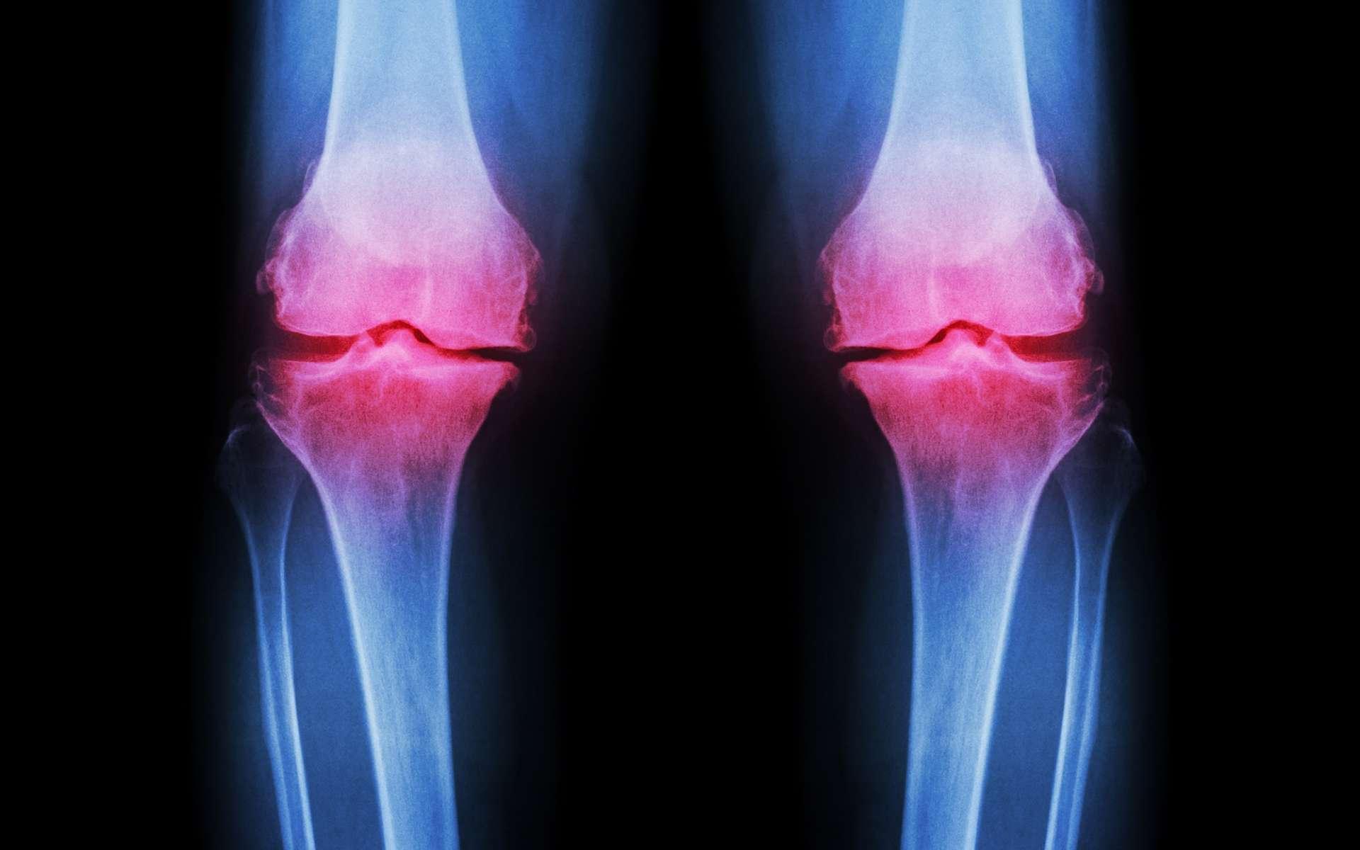 L'arthrose est une maladie douloureuse dans laquelle le cartilage est détruit. Et si l'impression 3D pouvait le régénérer ? © Puwadol Jaturawutthichai, Shutterstock