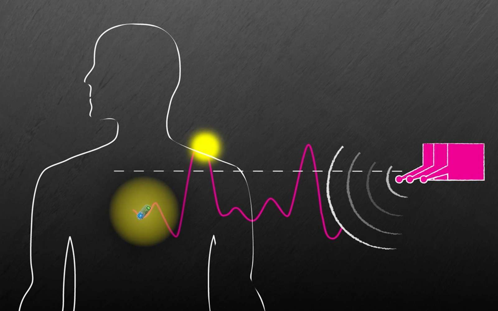 Le système de transmission sans fil du MIT repose sur une diffusion du signal radio via plusieurs antennes à différentes fréquences. © MIT, Brigham and Women's Hospital