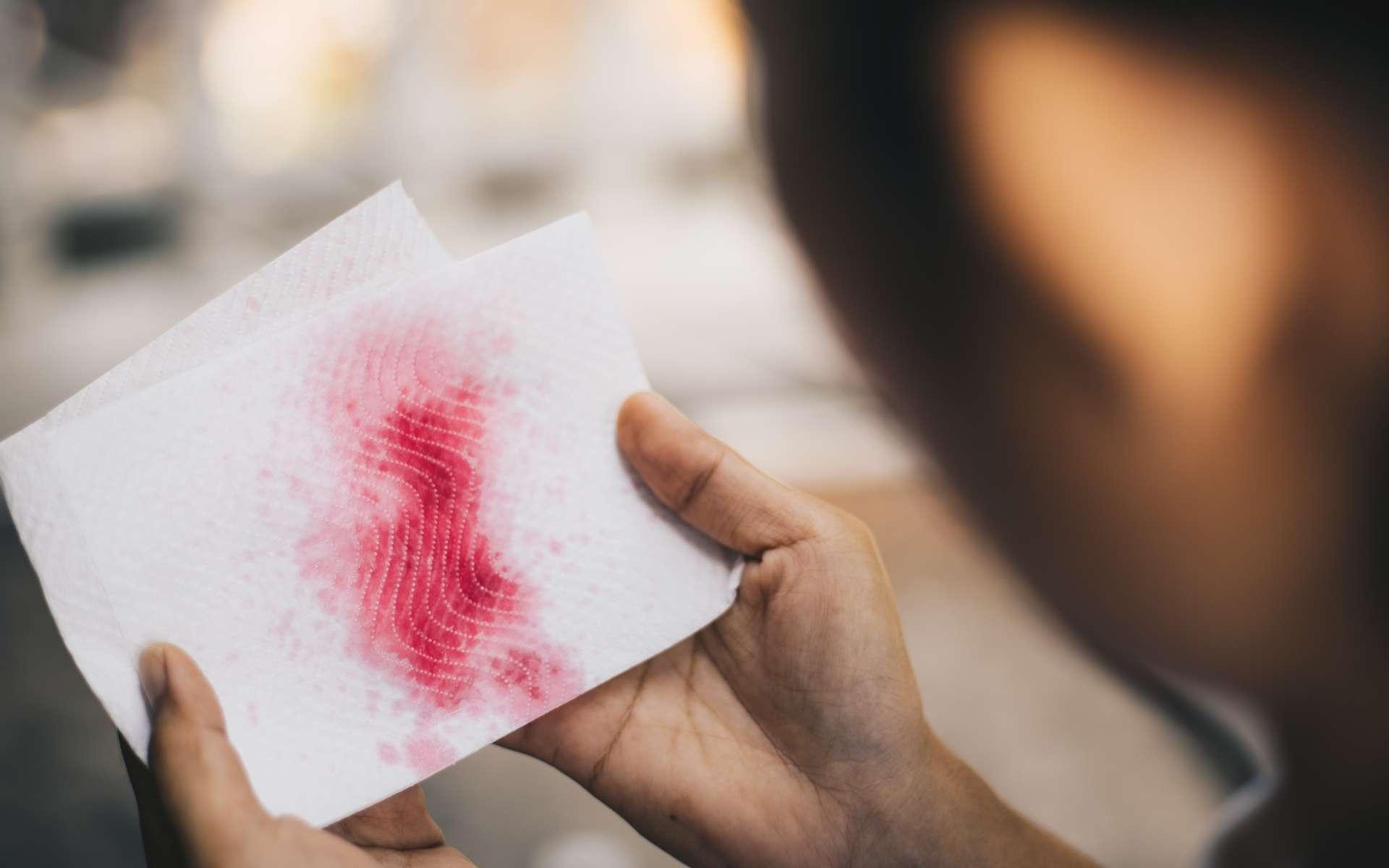 L'hémoptysie est une expectoration de sang par la bouche. © Anut21ng Photo, Adobe Stock