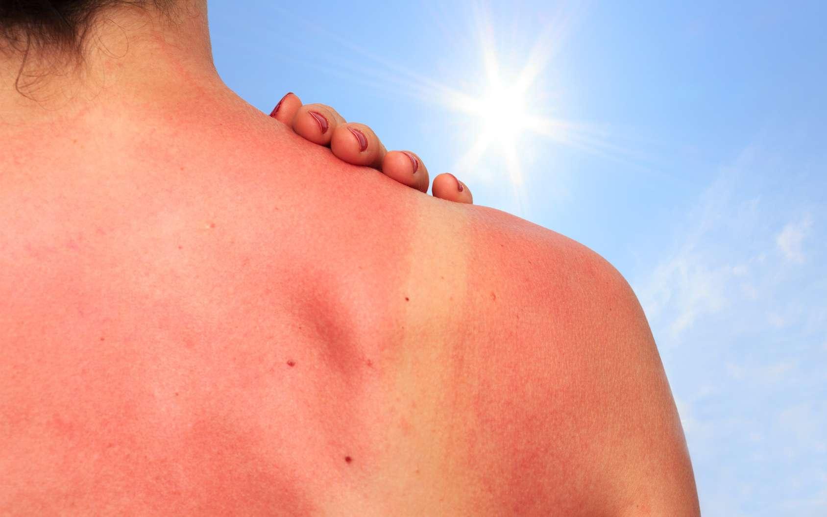 Un coup de soleil est une brûlure superficielle de la peau qui doit d'abord être refroidie. © juefraphoto, Fotolia