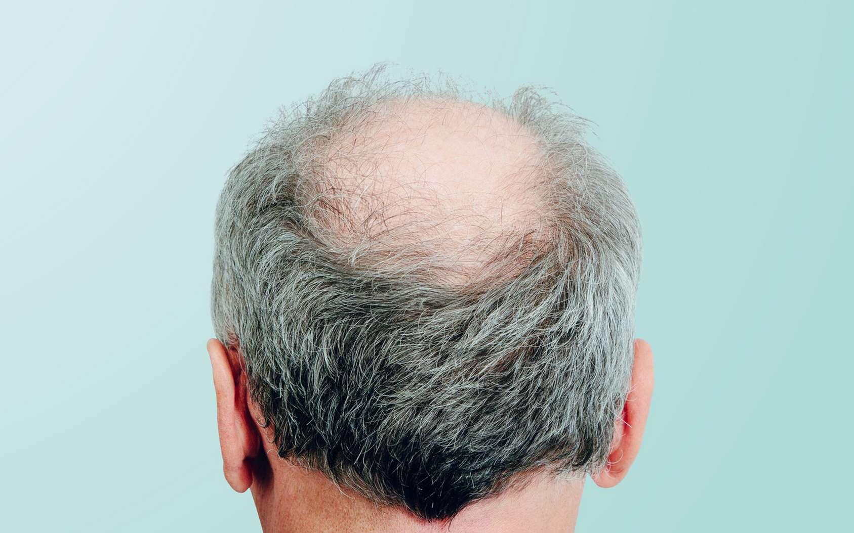 Certains médicaments permettent de ralentir la chute de cheveux. © Sebastian, Fotolia