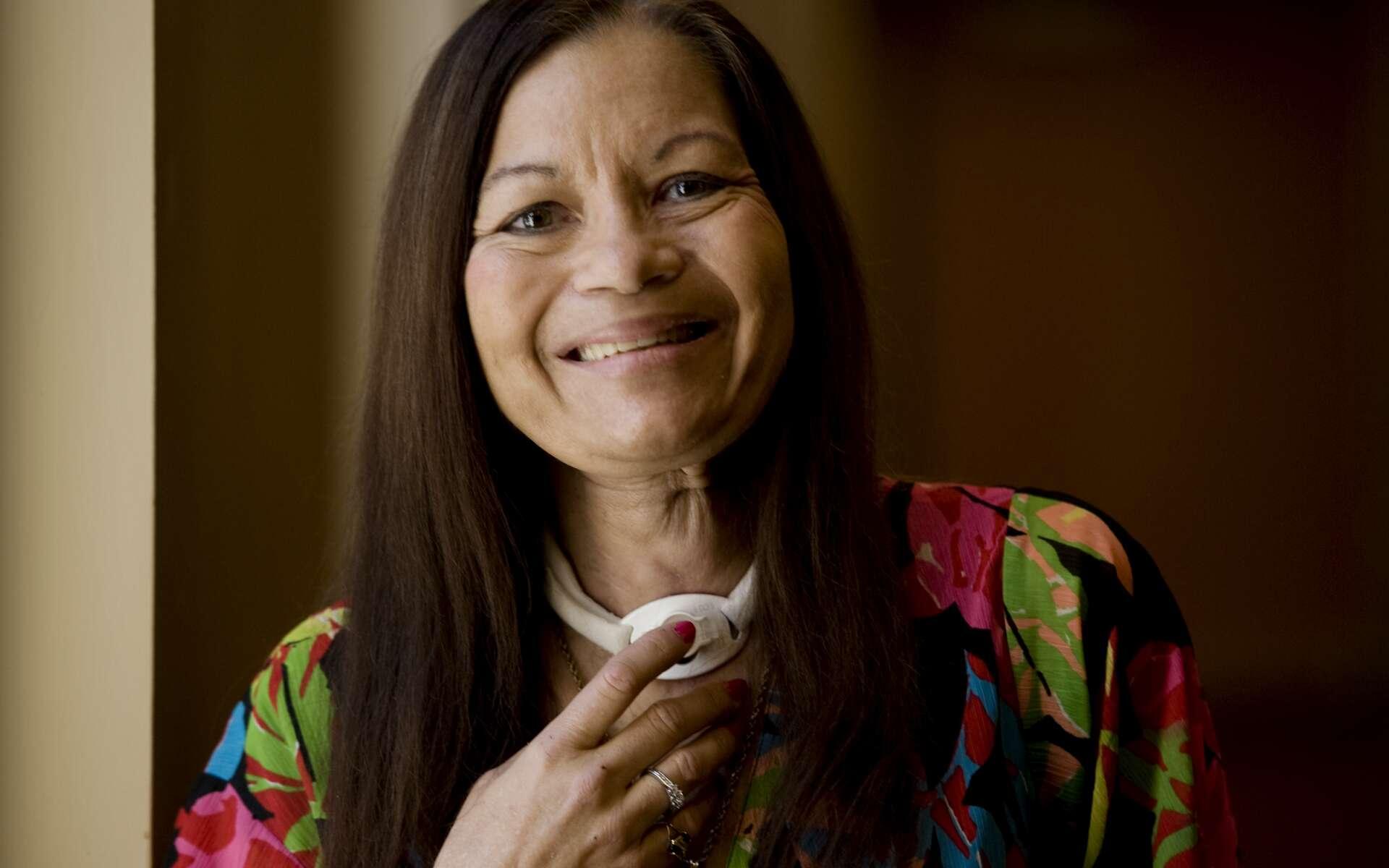La greffe de larynx a été réalisée avec brio sur une Américaine de 52 ans. © UC Davis Health System