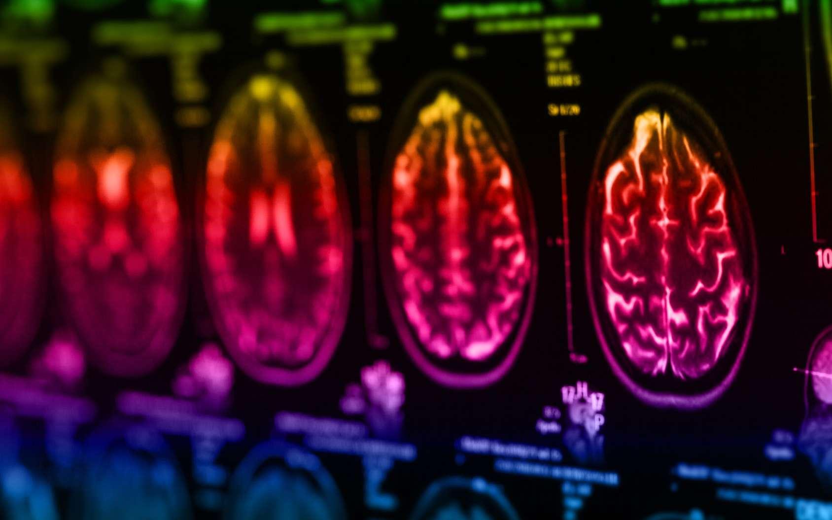 Les gliomes sont les tumeurs cérébrales les plus fréquentes. © merydolla, Fotolia