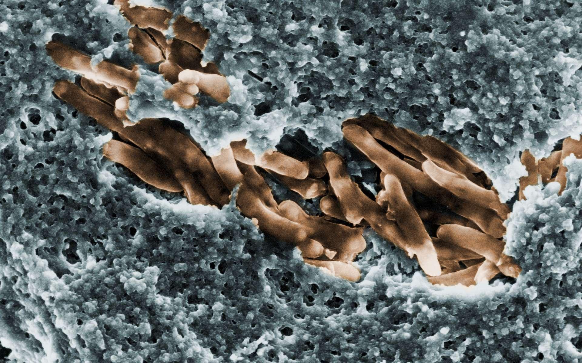 Mycobacterium ulcerans, l'agent étiologique de l'ulcère de Buruli. © Institut Pasteur/Laurent Marsollier