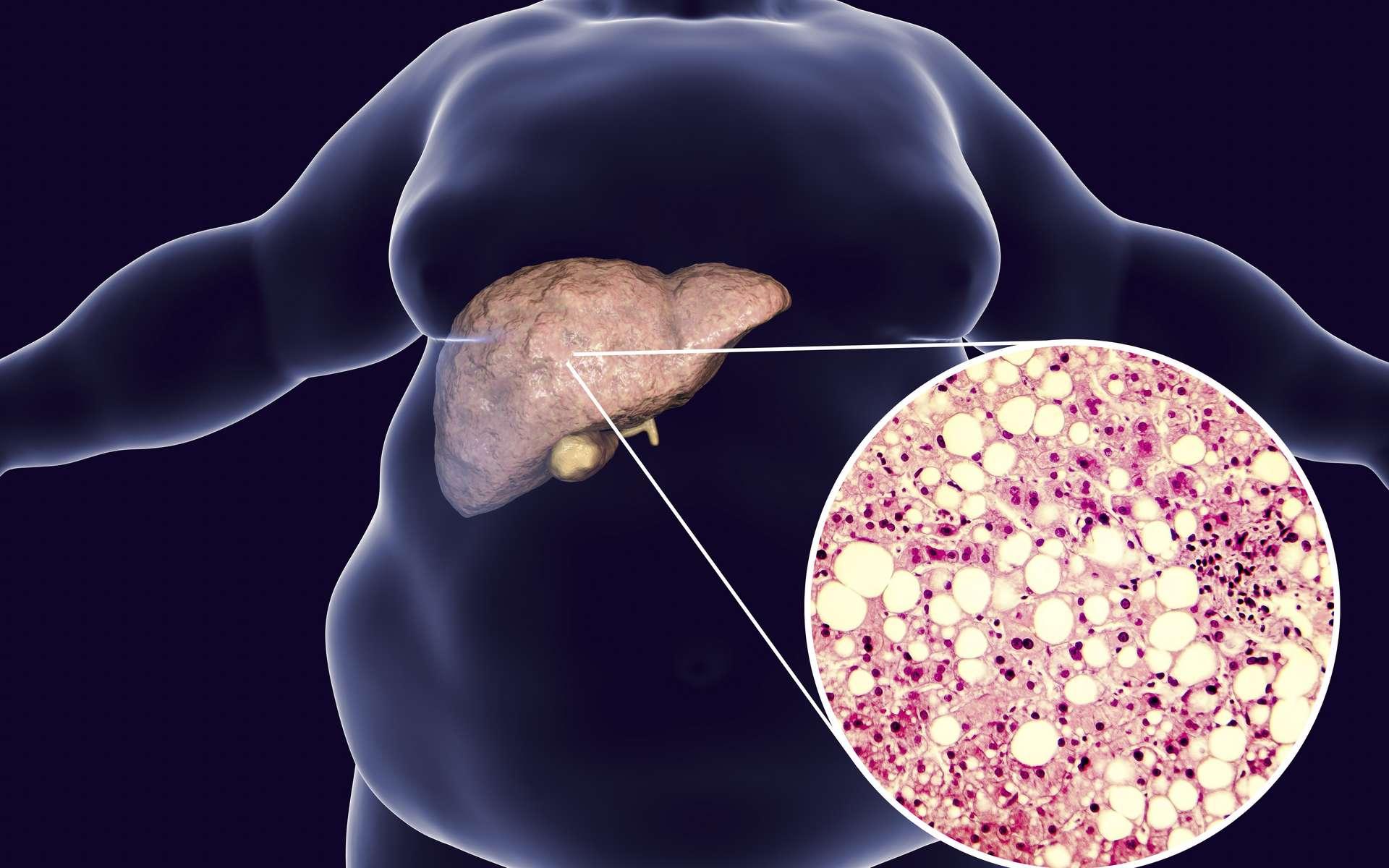 Stéatose du foie chez un homme obèse © Kateryna_Kan, Adobe Stock