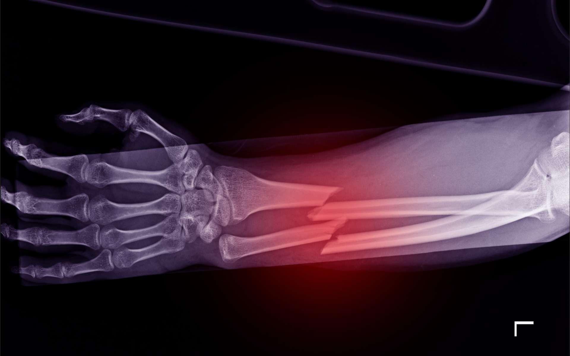 Les personnes qui ne mangent pas de viande sont plus à risque de faire des fractures osseuses. © Richman Photo