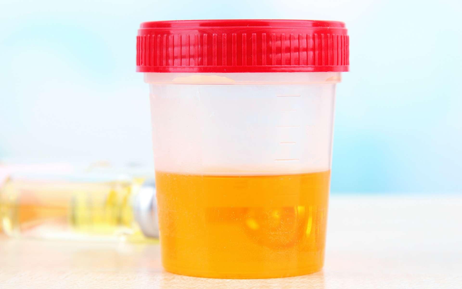 Le syndrome d'auto-fermentation urinaire est lié au développement de levures dans la vessie. © Africa Studio, Adobe Stock