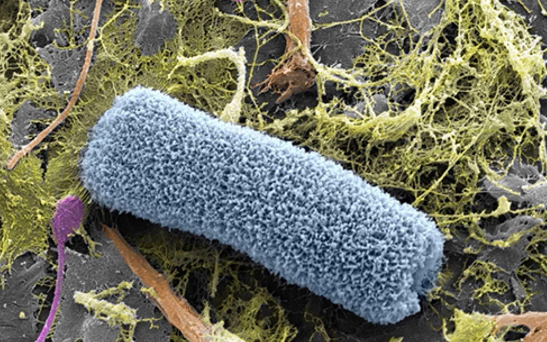 Image en microscopie électronique à balayage d'un microplastique collecté dans le gyre subtropical de l'Atlantique Nord lors de l'Expédition 7ème Continent 2015. L'image a été colorée. On distingue sur la surface en gris du plastique des microorganismes et un bio-polymère. © laboratoire des IMRCP