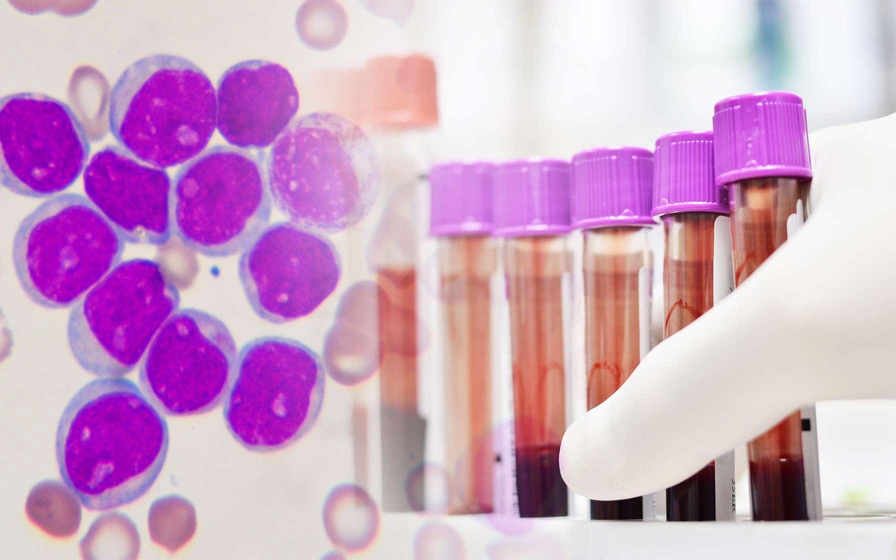 Les cellules CAR-T sont un espoir pour traiter des cancers du sang comme des leucémies. © kukhunthod, Fotolia