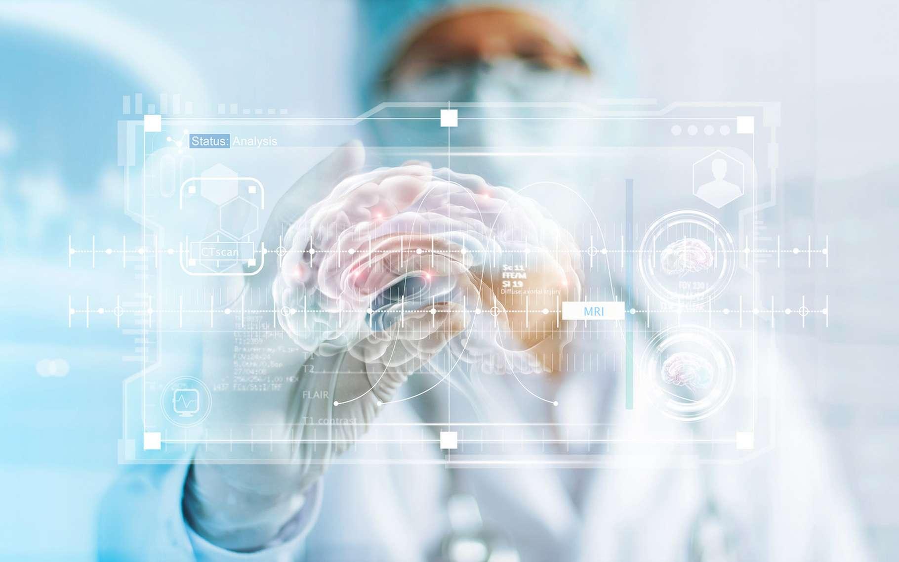 Des chercheurs ont analysé une grande quantité de données pour mettre au point un modèle d'évolution du cerveau qui leur a permis d'estimer des points de divergence entre des sujets sains et des sujets atteints de la maladie d'Alzheimer. © ipopba, Fotolia