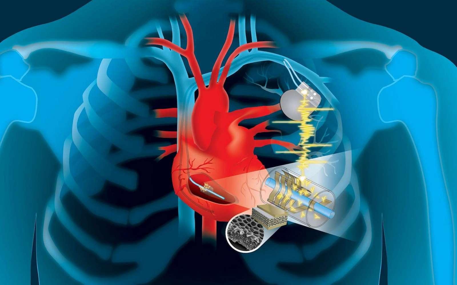 Le principe du système de recharge piézoélectrique d'un pacemaker. © Patricio R. Sarzosa, Thayer School of Engineering