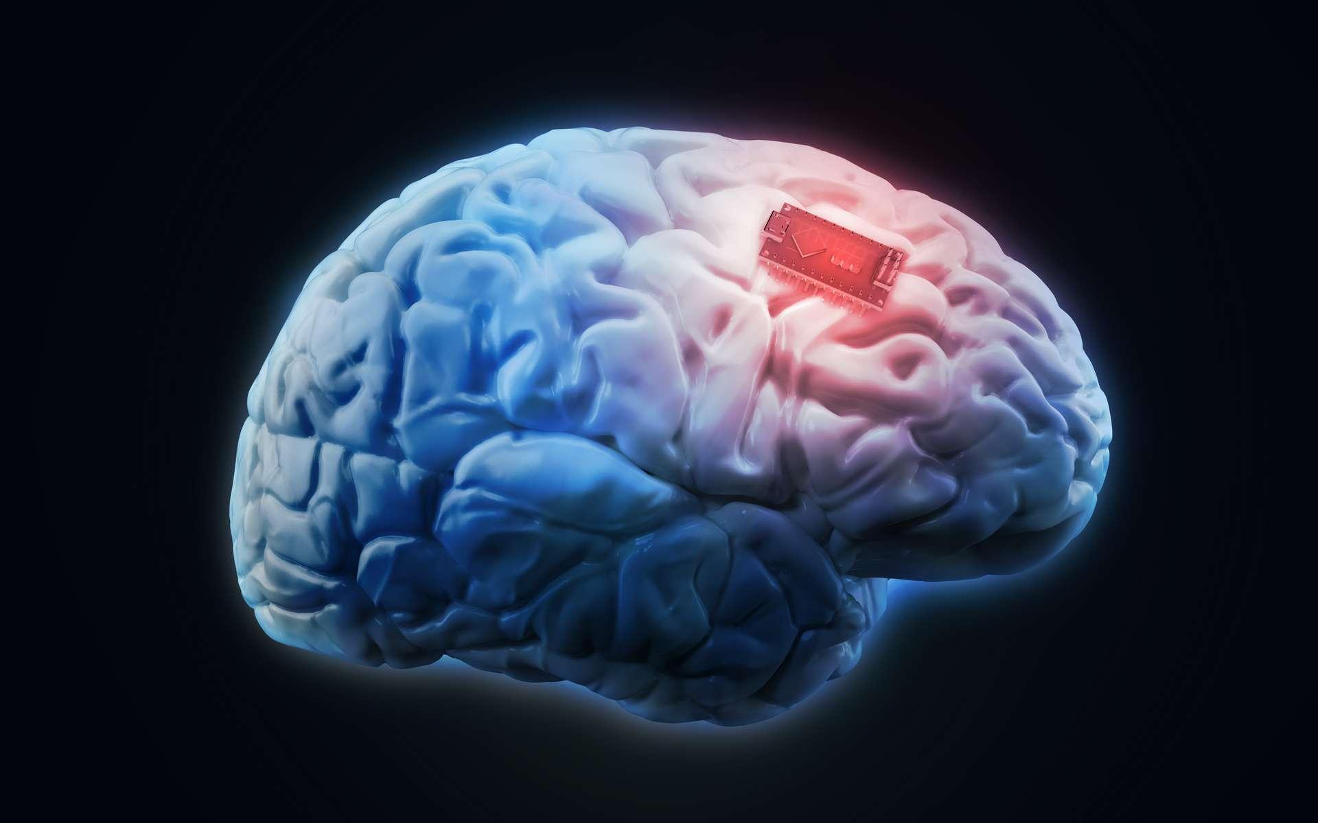 Implant connecté en bluetooth. © Mopic, Adobe Stock