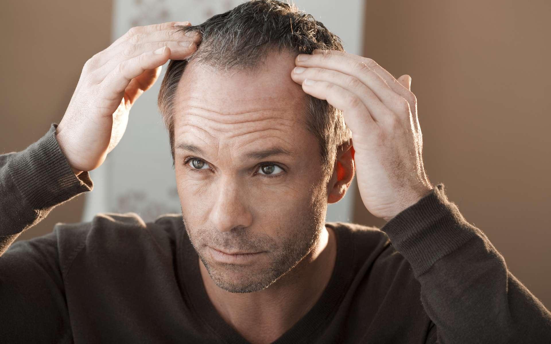Les hommes sont plus touchés par l'alopécie androgénétique héréditaire (la calvitie) que les femmes. © RFBSIP, Adobe Stock