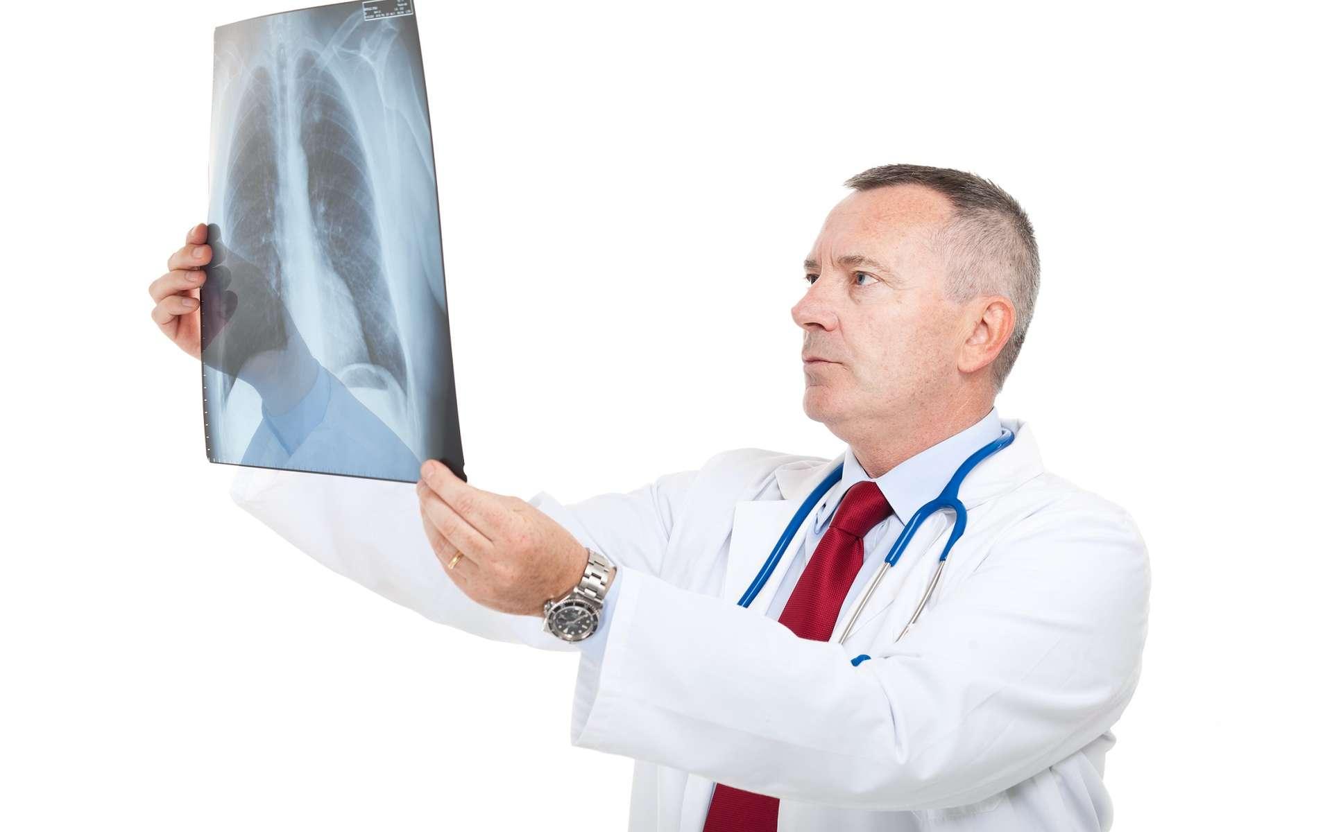 Le diagnostic d'embolie pulmonaire peut se faire à l'aide d'une radiographie du thorax. © Minerva Studio, Shutterstock