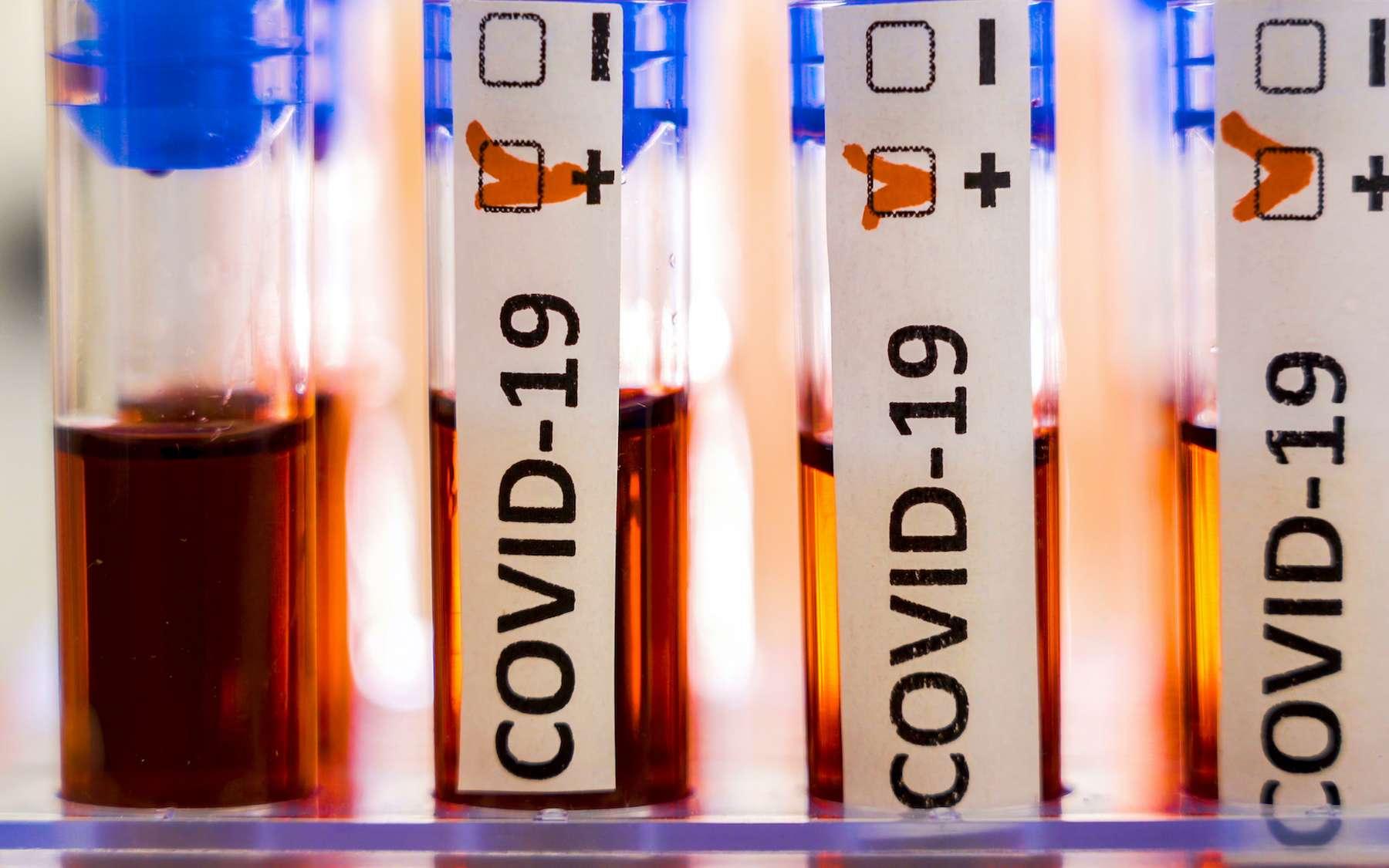 Coronavirus : on peut être infecté plusieurs fois de suite. © Nordicstocks, Adobe Stock