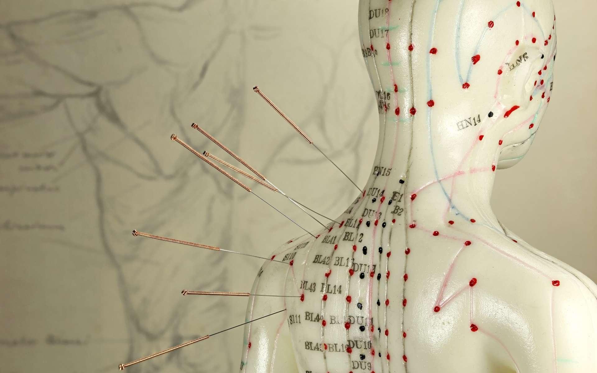 L'acupuncture est une médecine traditionnelle chinoise visant à rééquilibrer la circulation des énergies dans le corps humain. © Björn Wylezich, Adobe Stock.