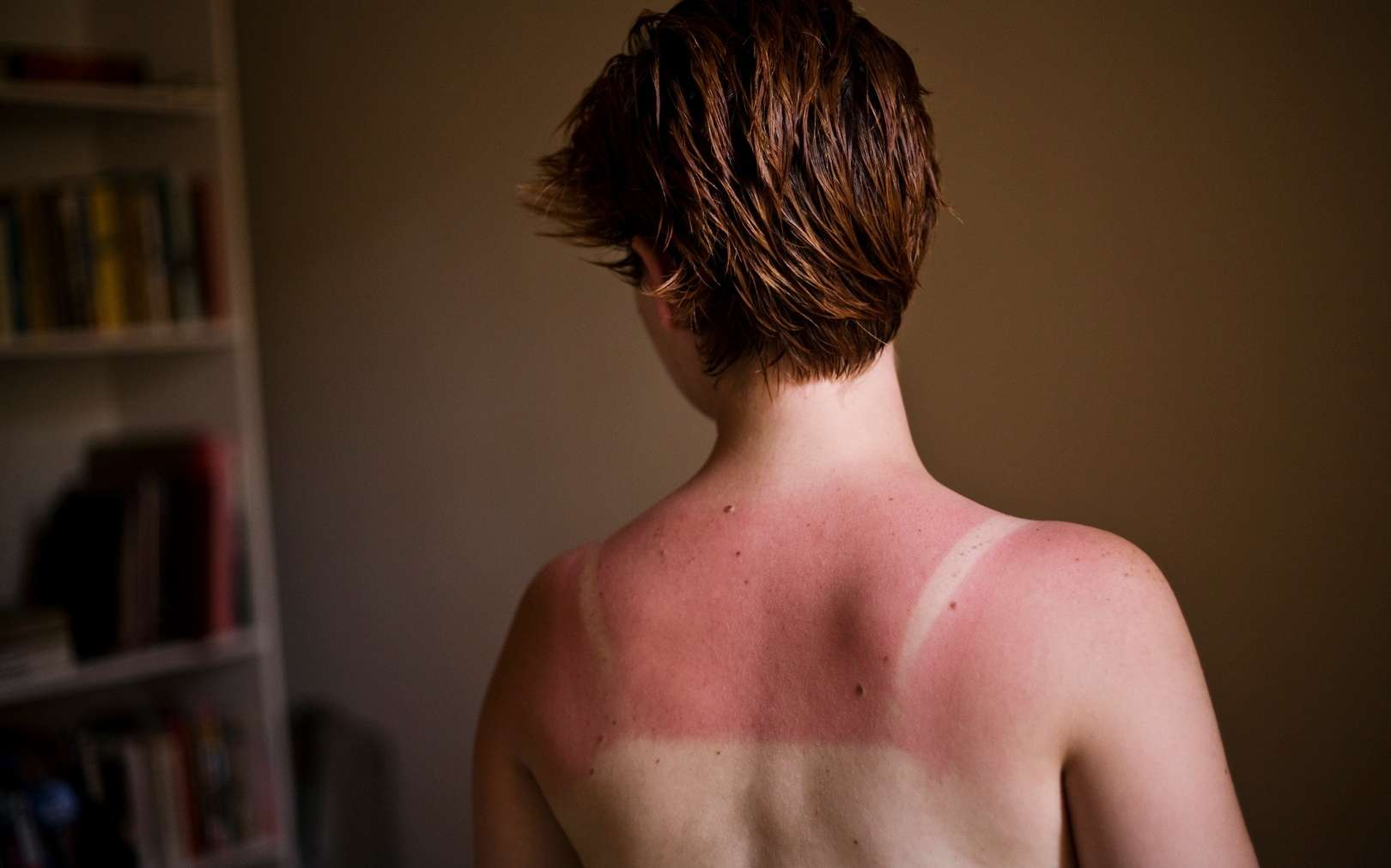Pour prévenir le développement de carcinomes, mieux vaut éviter les coups de soleil. © Brother O'Mara, Flickr CC by nc nd 3.0