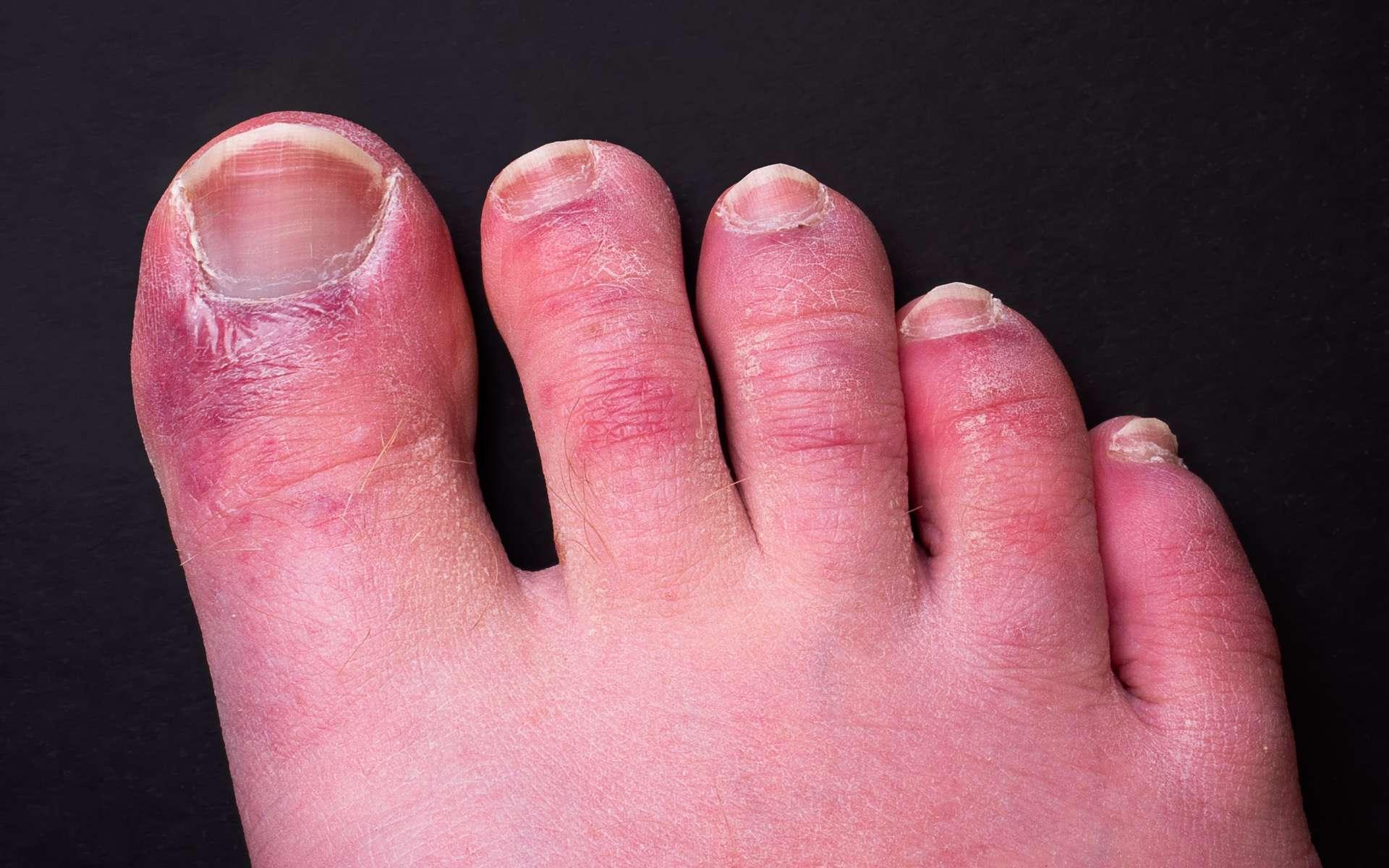 L'orteil violet, ou « orteil Covid », fait partie des éruptions cutanées symptomatiques de la Covid-19. © Christopher, Adobe Stock