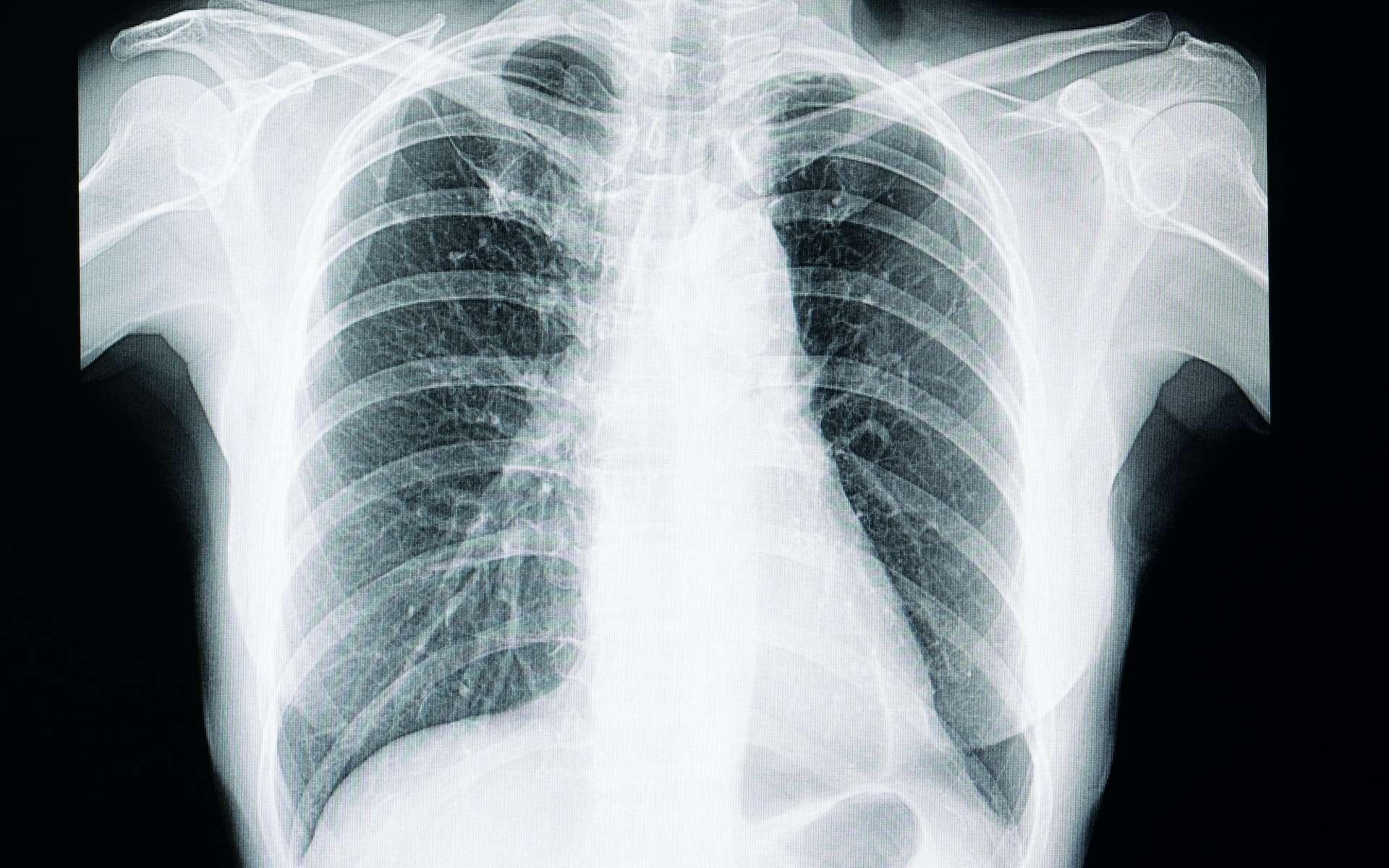 Le mésothéliome est un cancer de la plèvre principalement lié à une exposition à l'amiante. © SOPONE, Adobe Stock