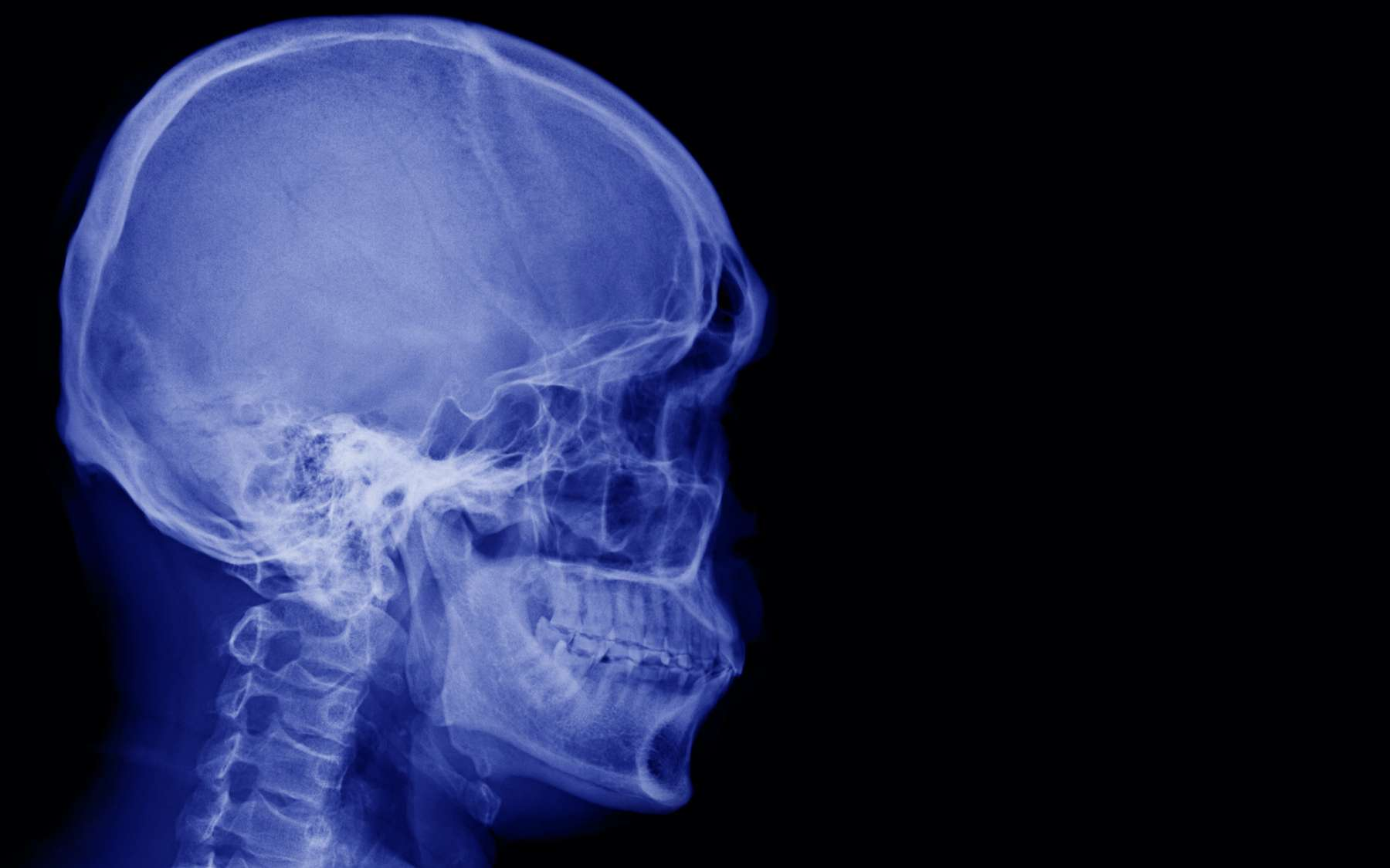 Il survit après s'être empalé la tête sur un tube métallique. © Choo, Adobe Stock
