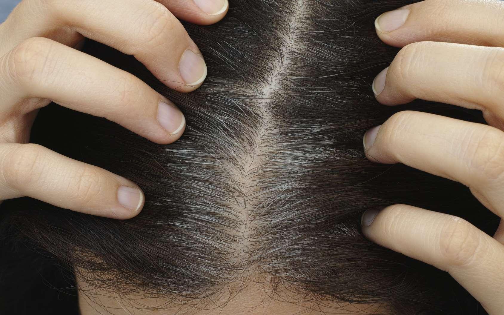 L'arrivée des cheveux blancs : un signe de vieillissement, pas forcément agréable… © rosinka79, Fotolia