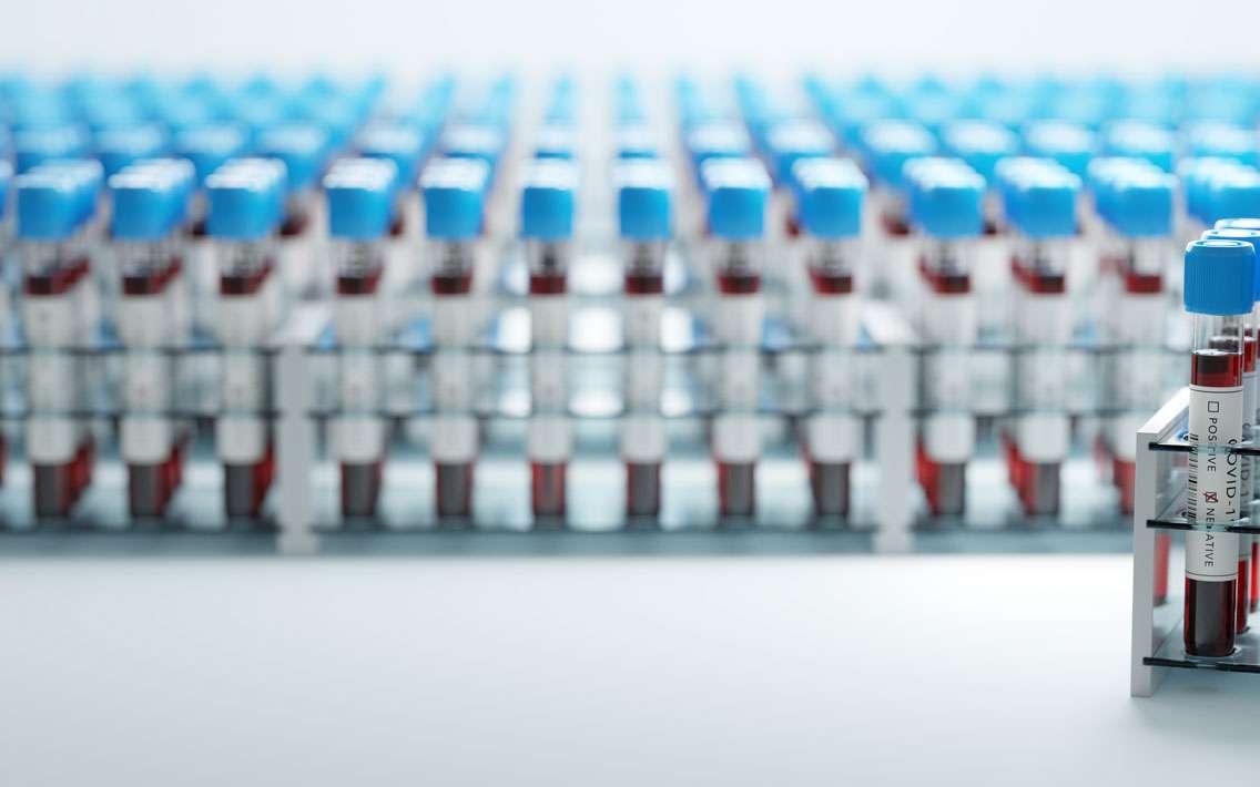 7 moyens sont disponibles à ce jour pour détecter une infection à la Covid-19 ©photocreo, Envato elements