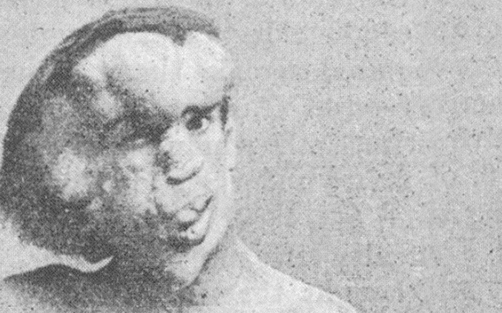 Découvrez l'histoire de Joseph Merrick, un homme immortalisé par David Lynch sous le nom d'Elephant Man © Wikimedia Commons, Futura, Freepik