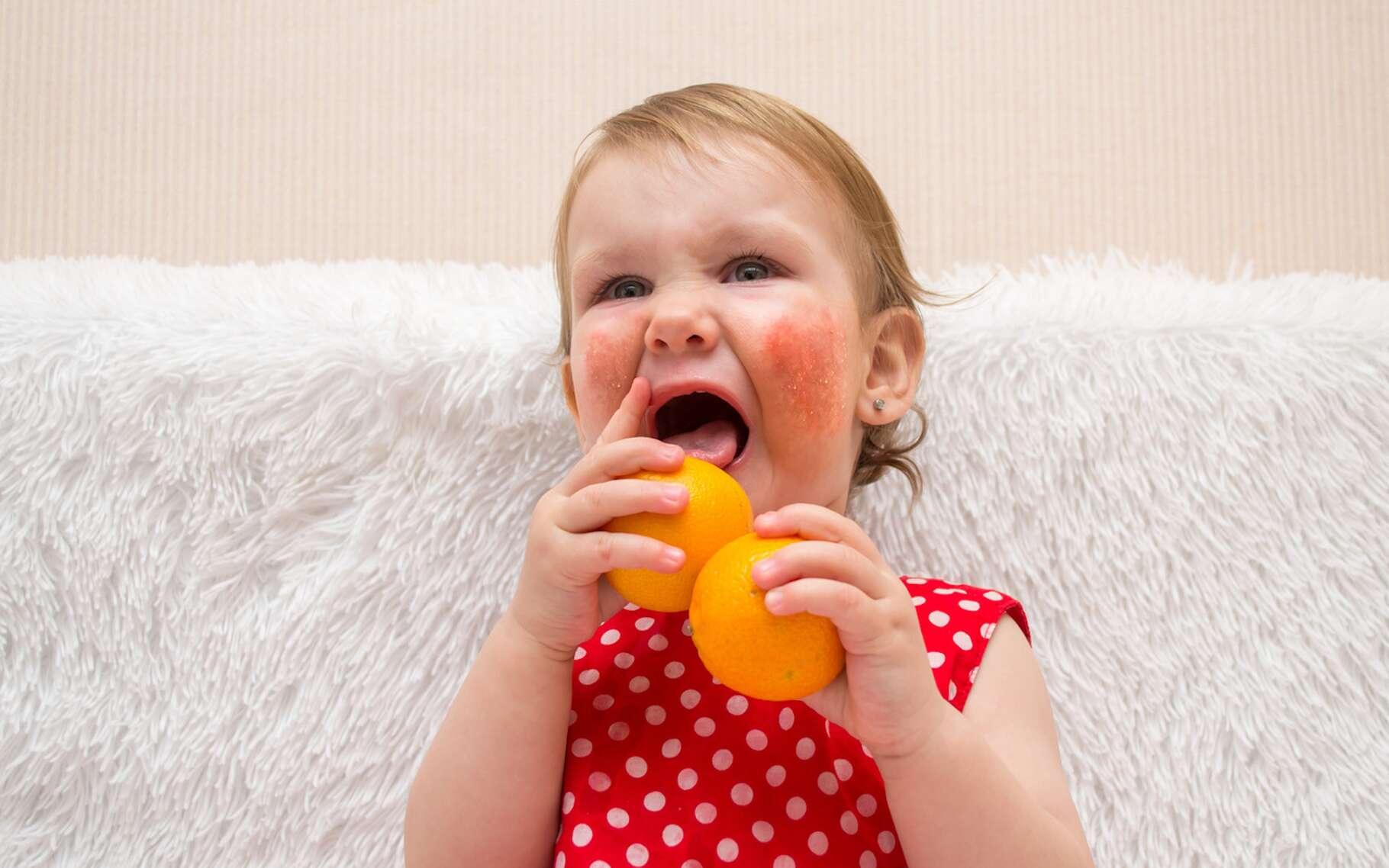 Allergie alimentaire et intolérance alimentaire ne résultent pas du même mécanisme. Mais les symptômes peuvent se rejoindre. © silentalex88, Fotolia