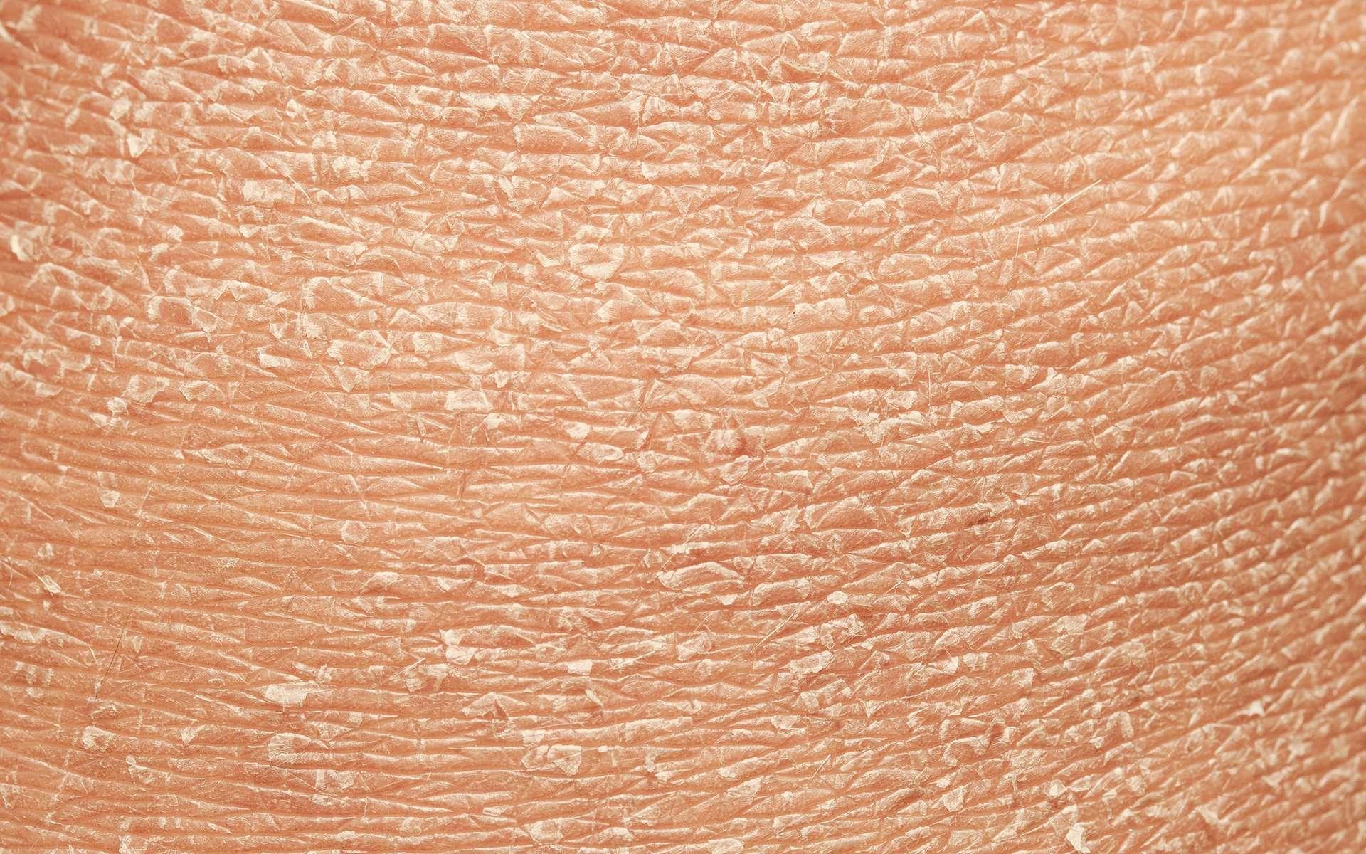 La peau se renouvelle en permanence, les cellules mortes étant éliminées sous forme de squames. © nataba, Adobe Stock