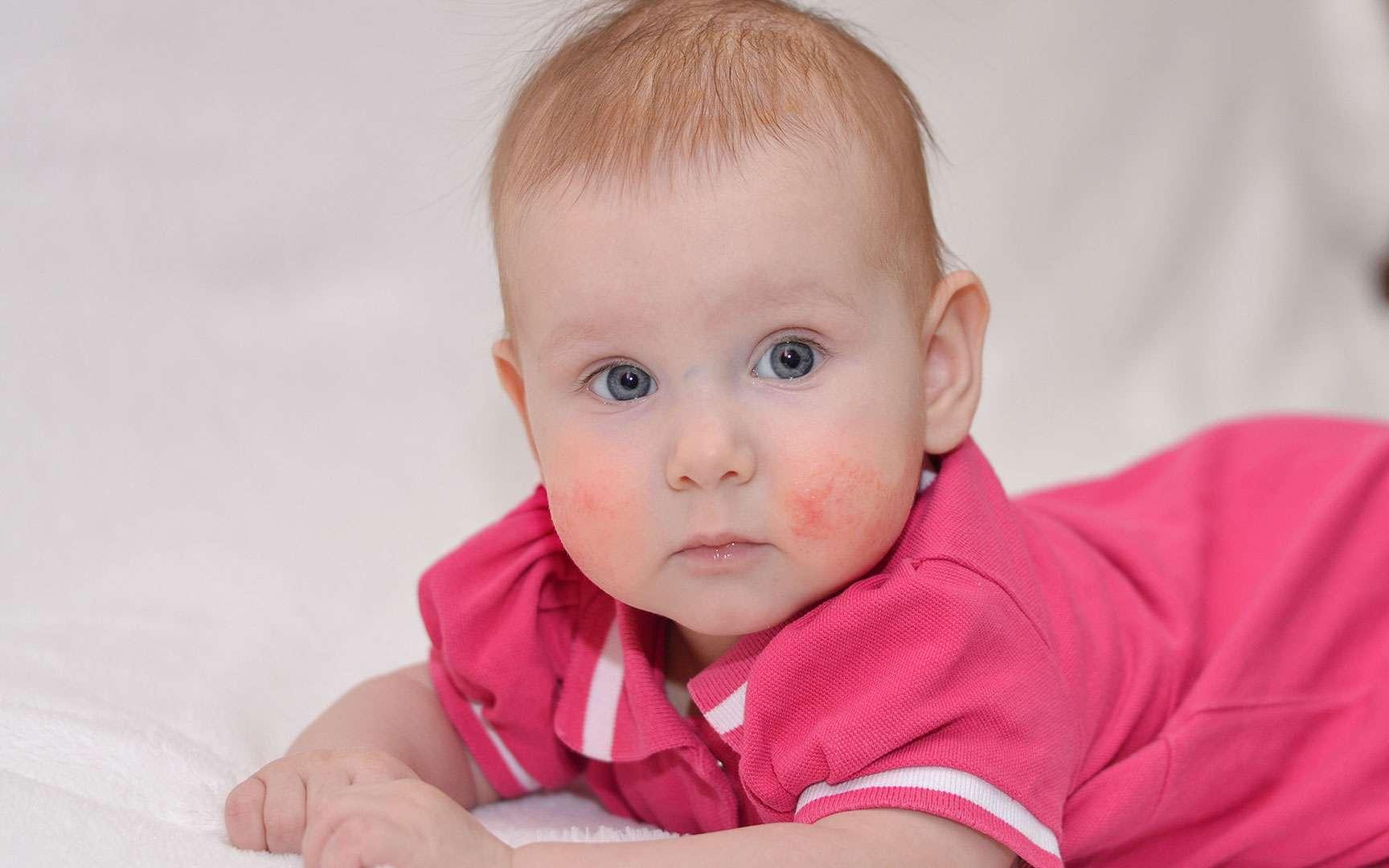 La dermatite atopique, ou eczéma atopique, chez le nourrisson. ©Silentalex88, Fotolia