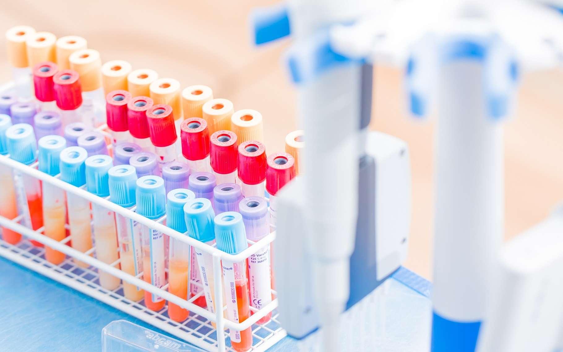 La cytométrie en flux permet de trier des cellules en fonction de leurs propriétés physiques et optiques dans des échantillons hétérogènes, comme le sang. © science photo, Shutterstock