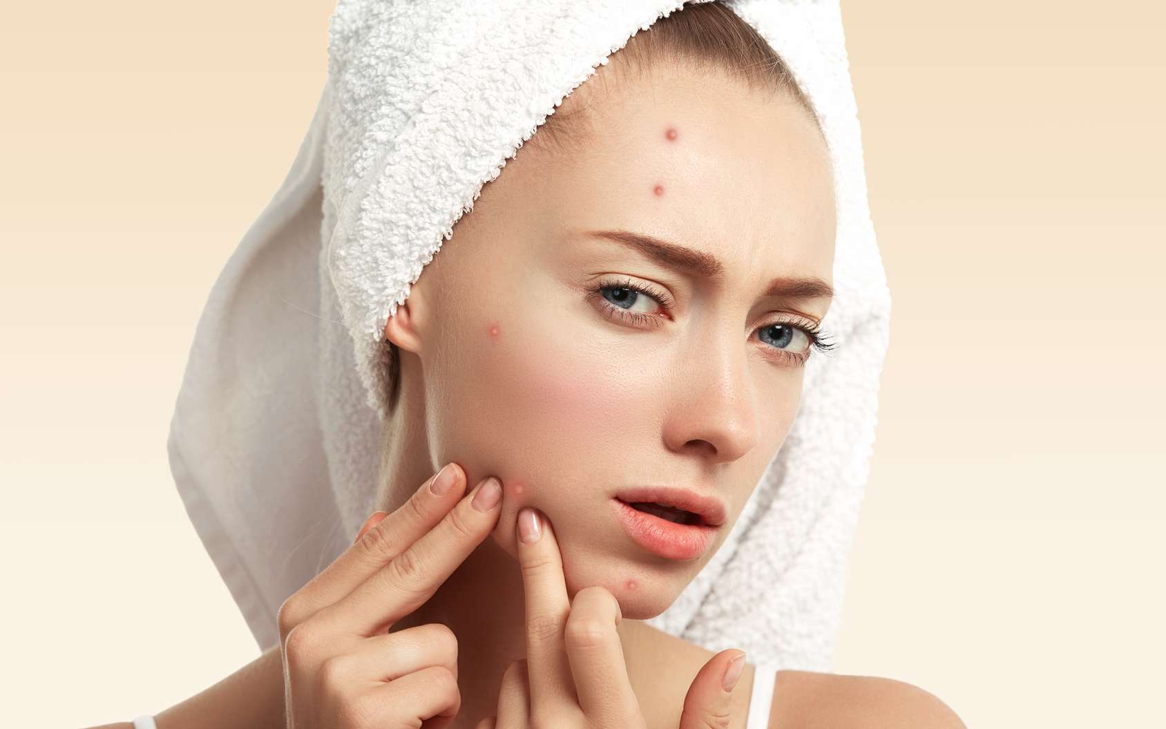 De plus en plus d'adulte sont touchés par l'acné. © Wayhome Studio, fotolia