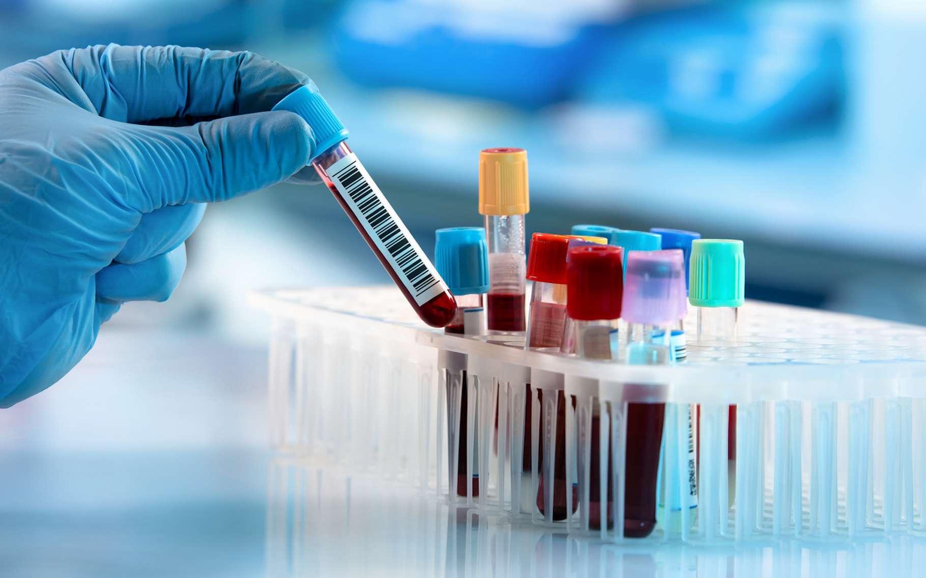 Grâce aux travaux de chercheurs de l'université de Washington (États-Unis), le rêve d'un test sanguin permettant de dépister la maladie d'Alzheimer jusqu'à 20 ans avant que les premiers symptômes se déclarent pourrait bientôt devenir réalité. © angellodeco, Fotolia