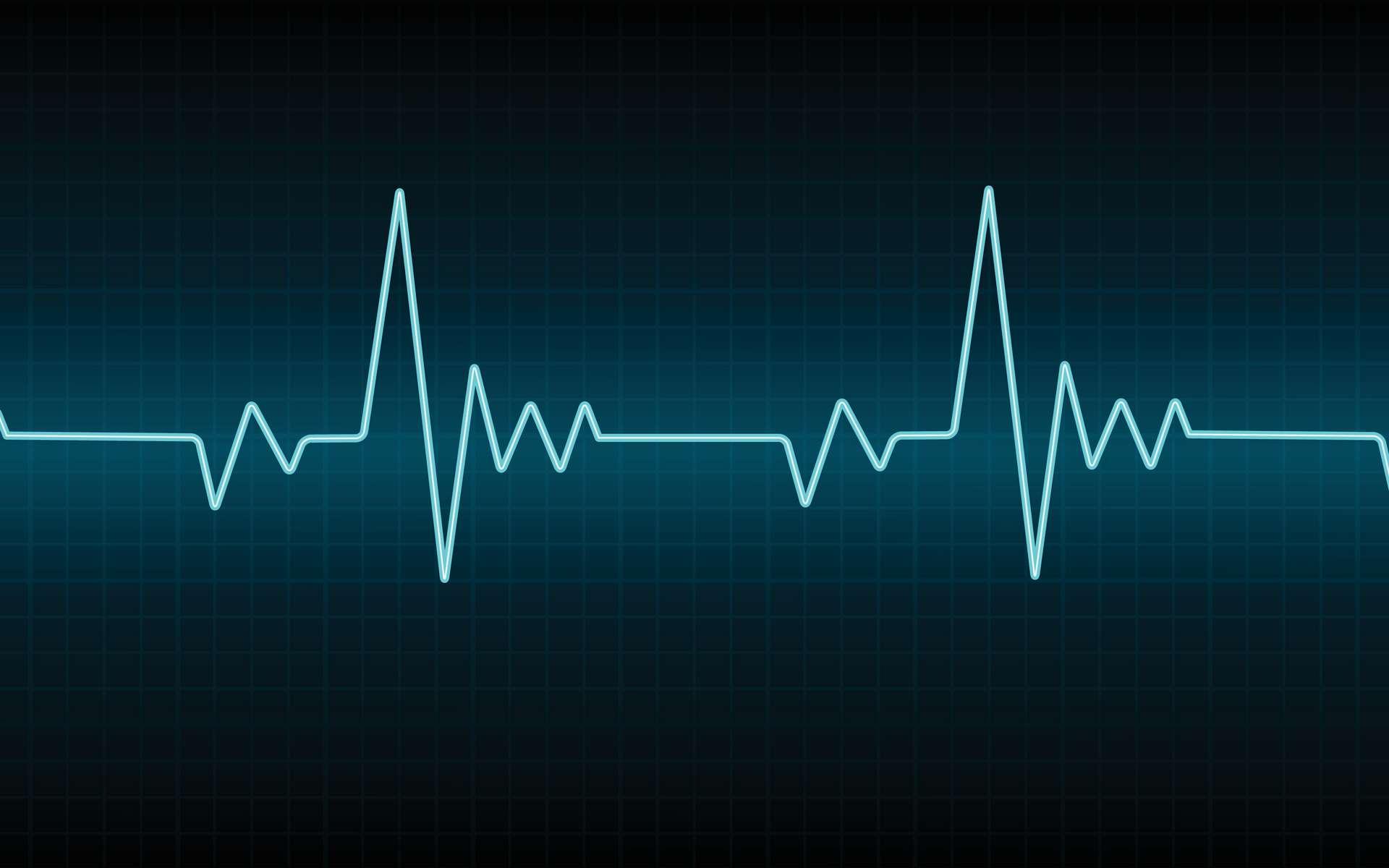 Cette image représente un électrocardiogramme normal, et chaque onde P, Q, R, S et T est signalée. © Vector Bucket, Adobe Stock