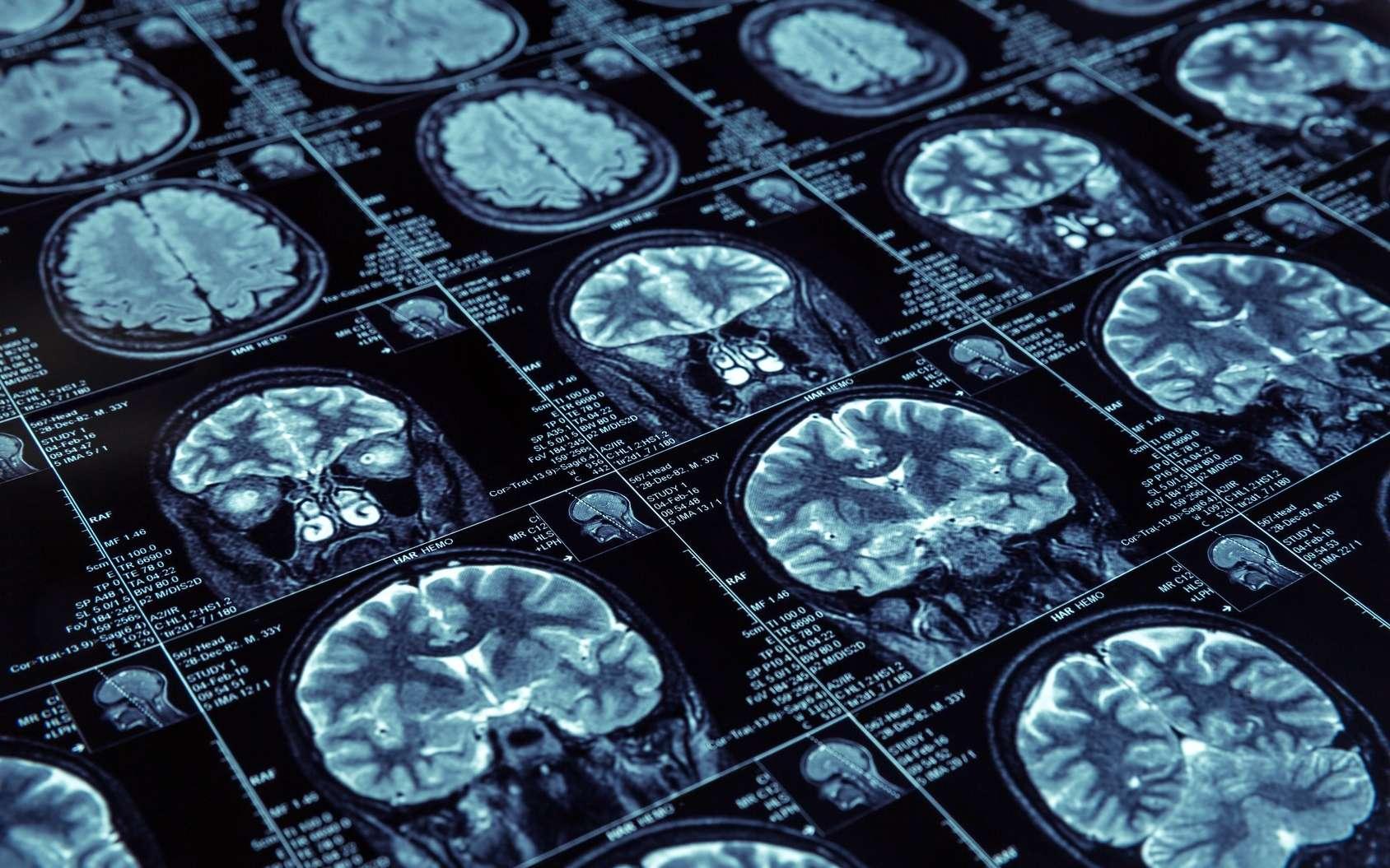 Dans le cerveau des malades d'Alzheimer, des plaques protéiques s'accumulent entre et dans les cellules. Une nouvelle étude propose un vaccin pour les détruire. © Nomad_Soul, Fotolia