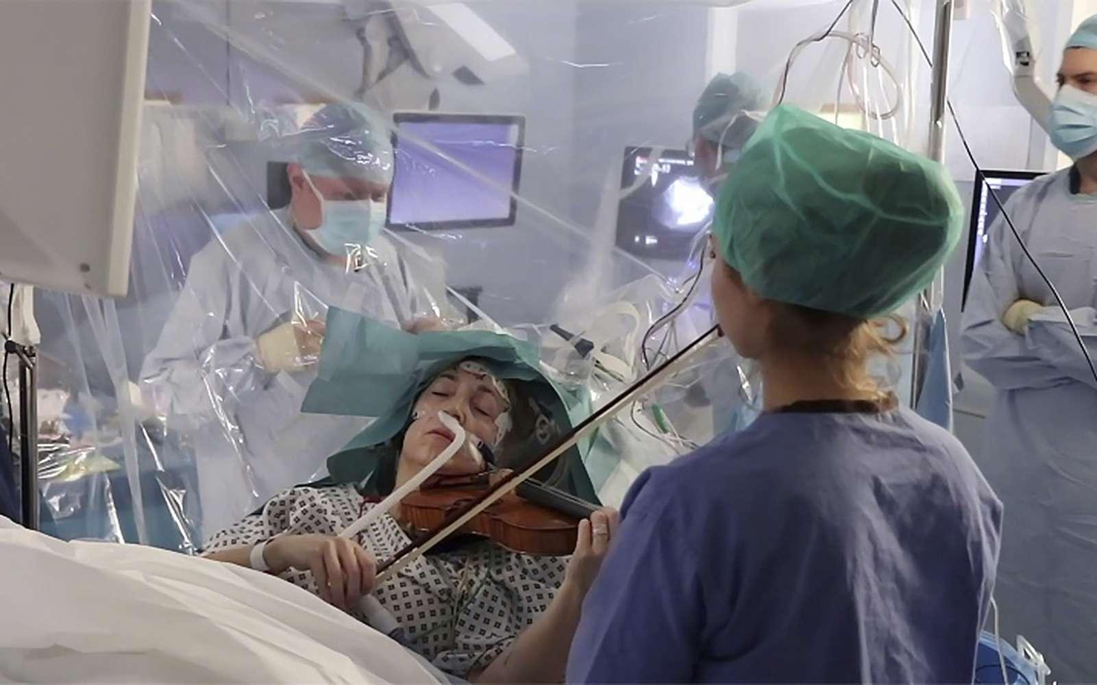 Une violoniste joue pendant son opération du cerveau pour guider les chirurgiens afin de sauver sa main. © King's College Hospital, AFP
