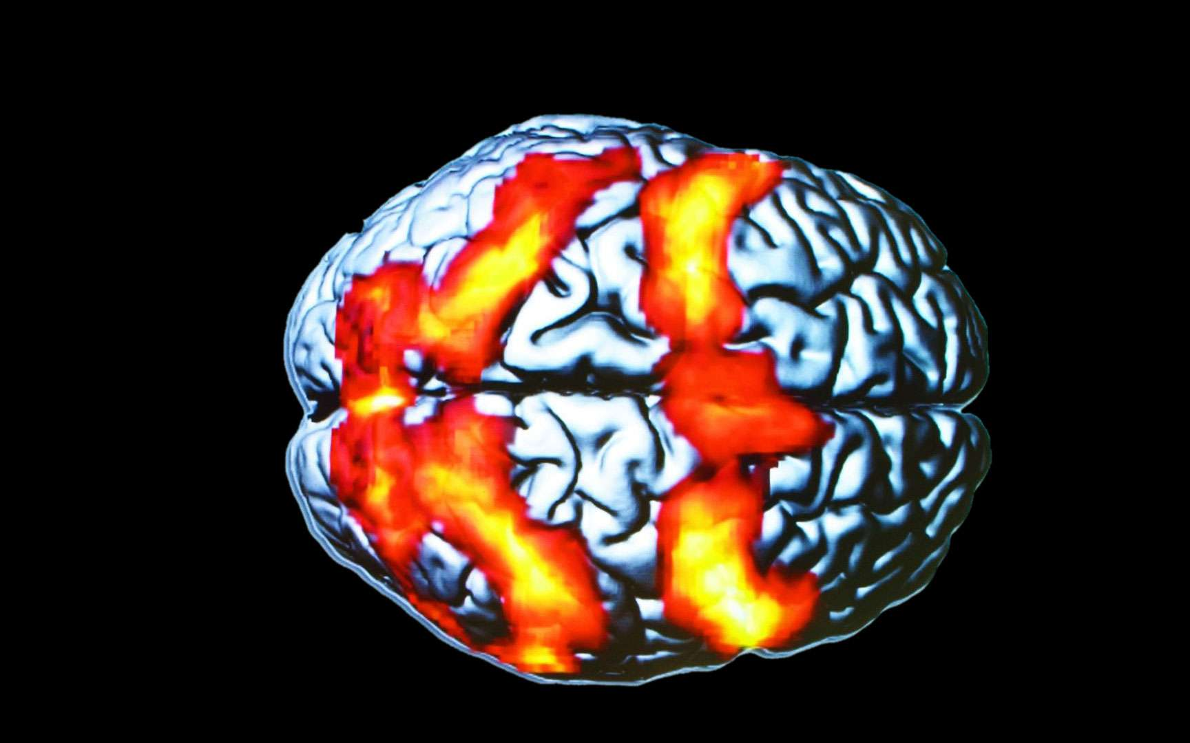 L'IRM permet de voir les régions qui s'activent dans le cerveau. Ce cliché d'IRM fonctionnelle n'a rien à voir avec un test de Rorschach (ces planches utilisées en psychiatrie pour évaluer la santé psychiatrique d'un individu). Les taches orange correspondent aux régions du cerveau activées par un sujet lors d'un exercice durant lequel il devait suivre des yeux une cible mobile. © CNRS Photothèque, Ci-Naps, Laurent Petit, Bernard Mazoyer