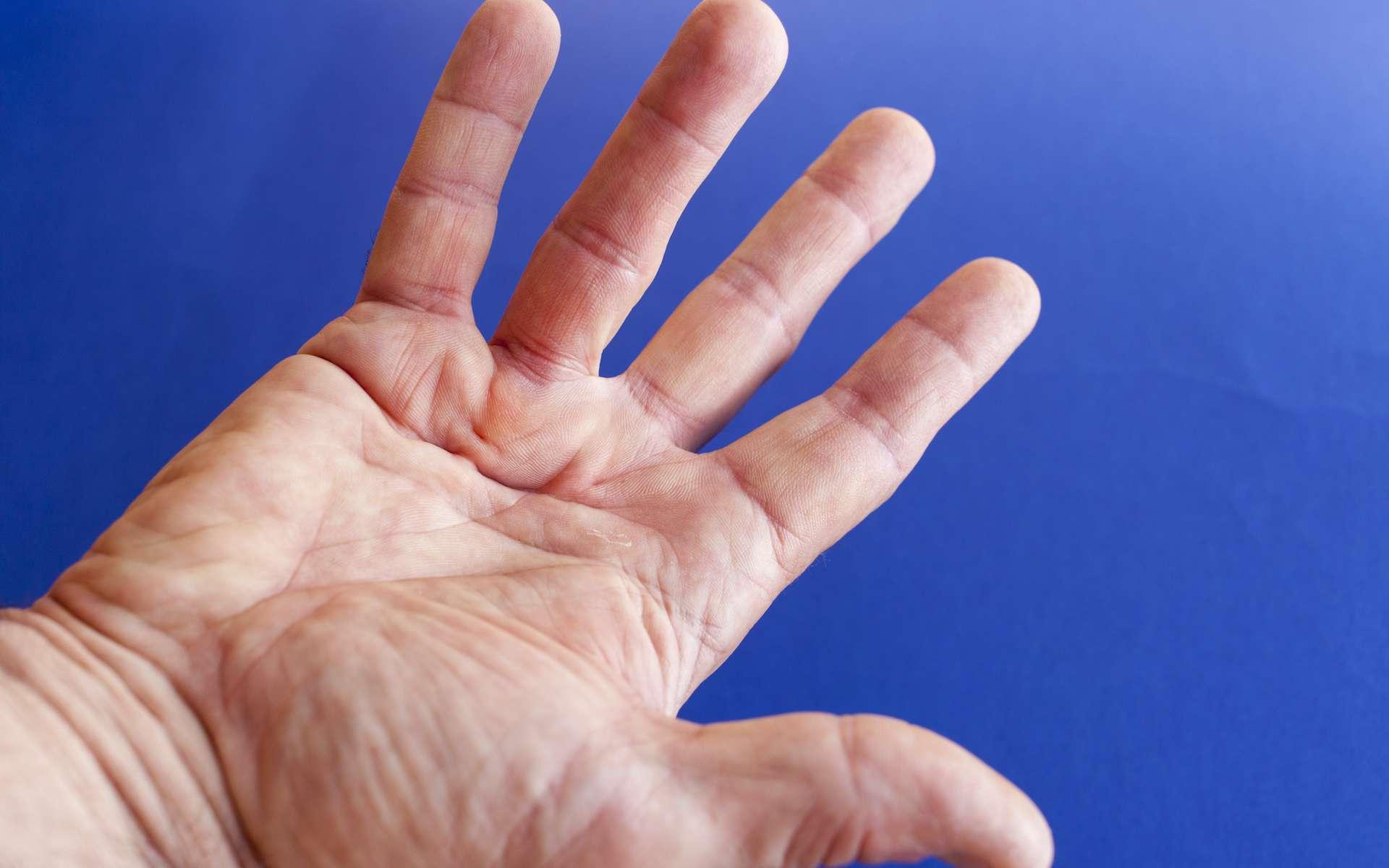 La maladie de Dupuytren entraîne une déformation de la main avec des doigts figés en crochet. © perfectmatch, Adobe Stock