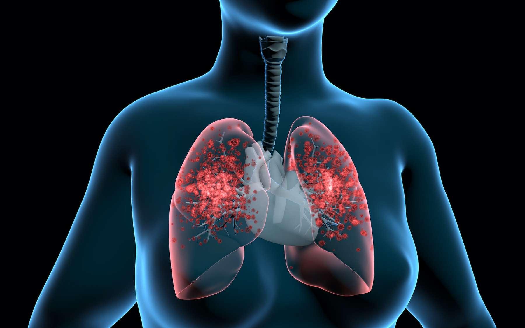 La fibrose pulmonaire pourrait être responsable de troubles de la coagulation qui entraînerait des évènements thrombotiques mais des données rigoureuses manquent encore pour conclure définitivement. © TuMeggy, Adobe Stock