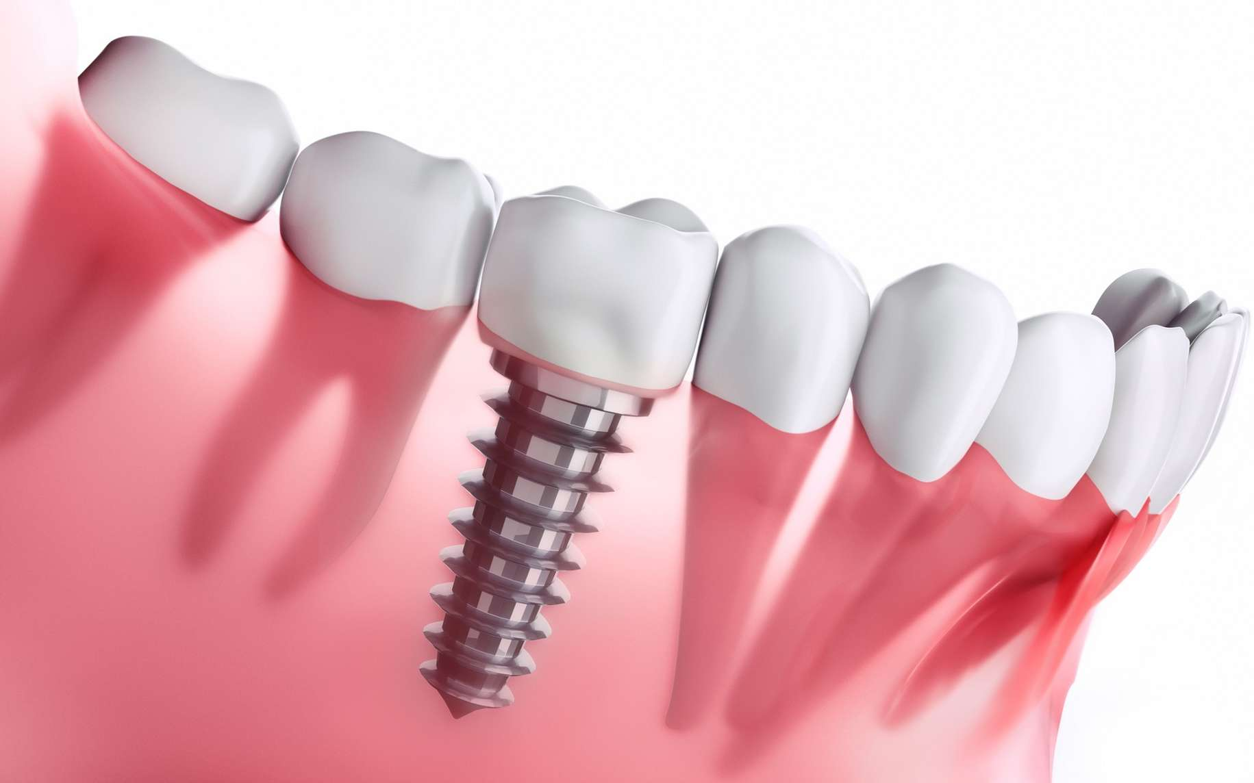 L'implant dentaire comprend une vis biocompatible pour fixer la couronne dans la gencive. © peterschreiber.media, Fotolia