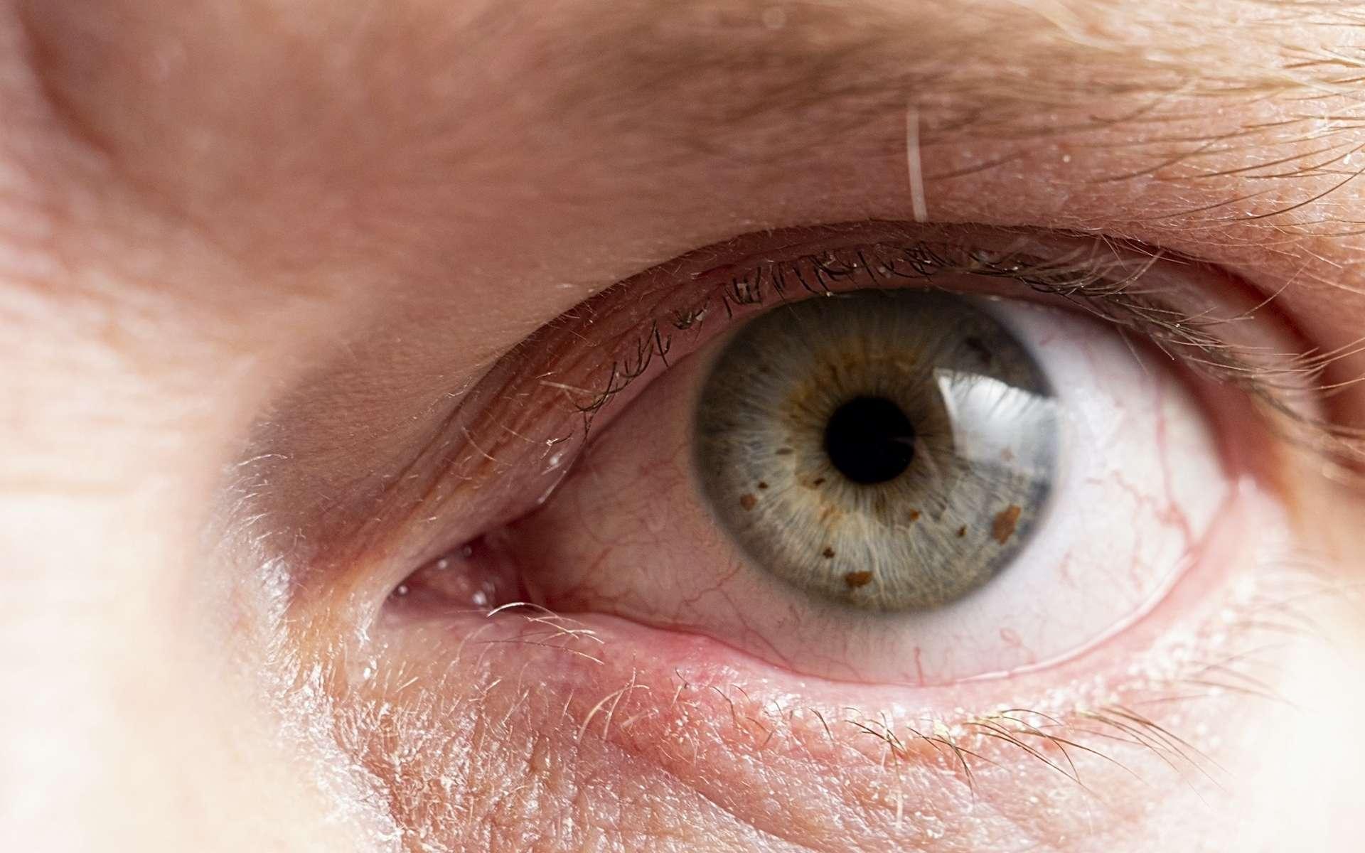 Le syndrome de Gougerot-Sjögren se manifeste par un syndrome sec des yeux et de la bouche. © EduardSkorov, Adobe Stock