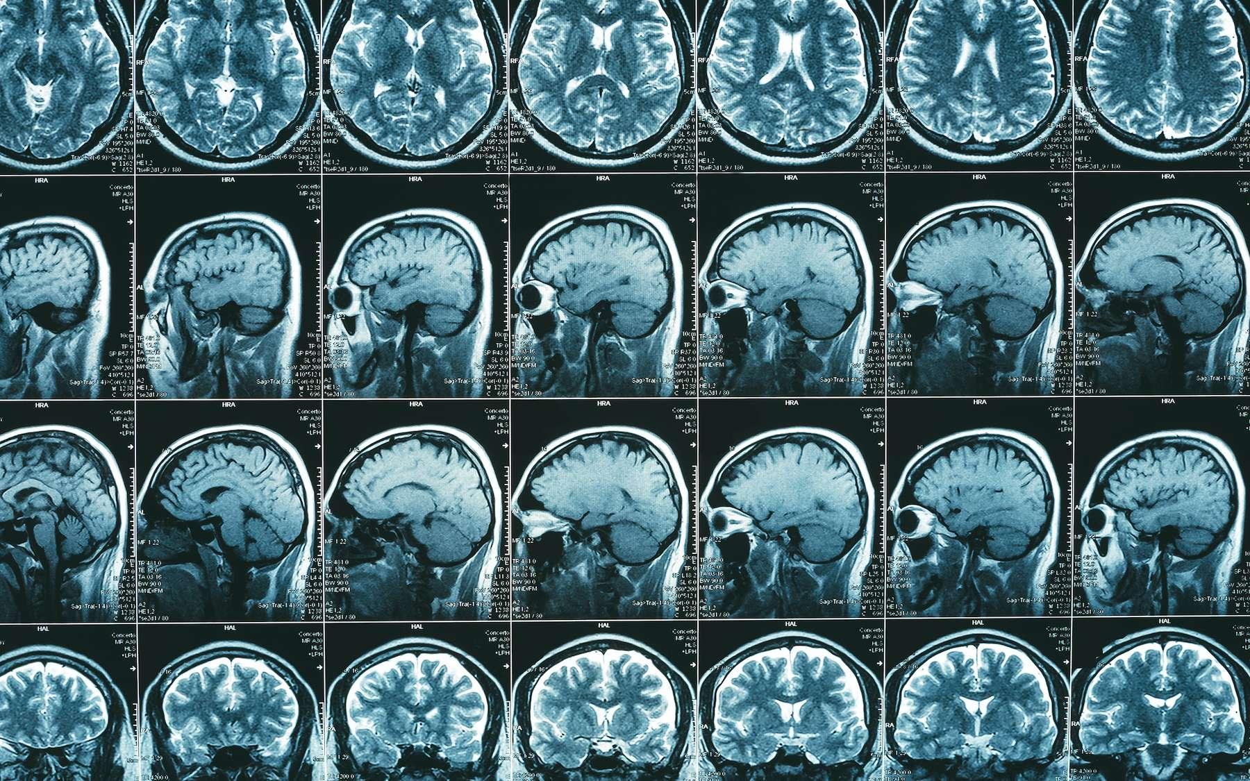 Les études montrant l'implication d'une zone du cerveau dans une tâche ou lors d'une émotion sont très peu reproductibles. © DedMityay, Adobe Stock