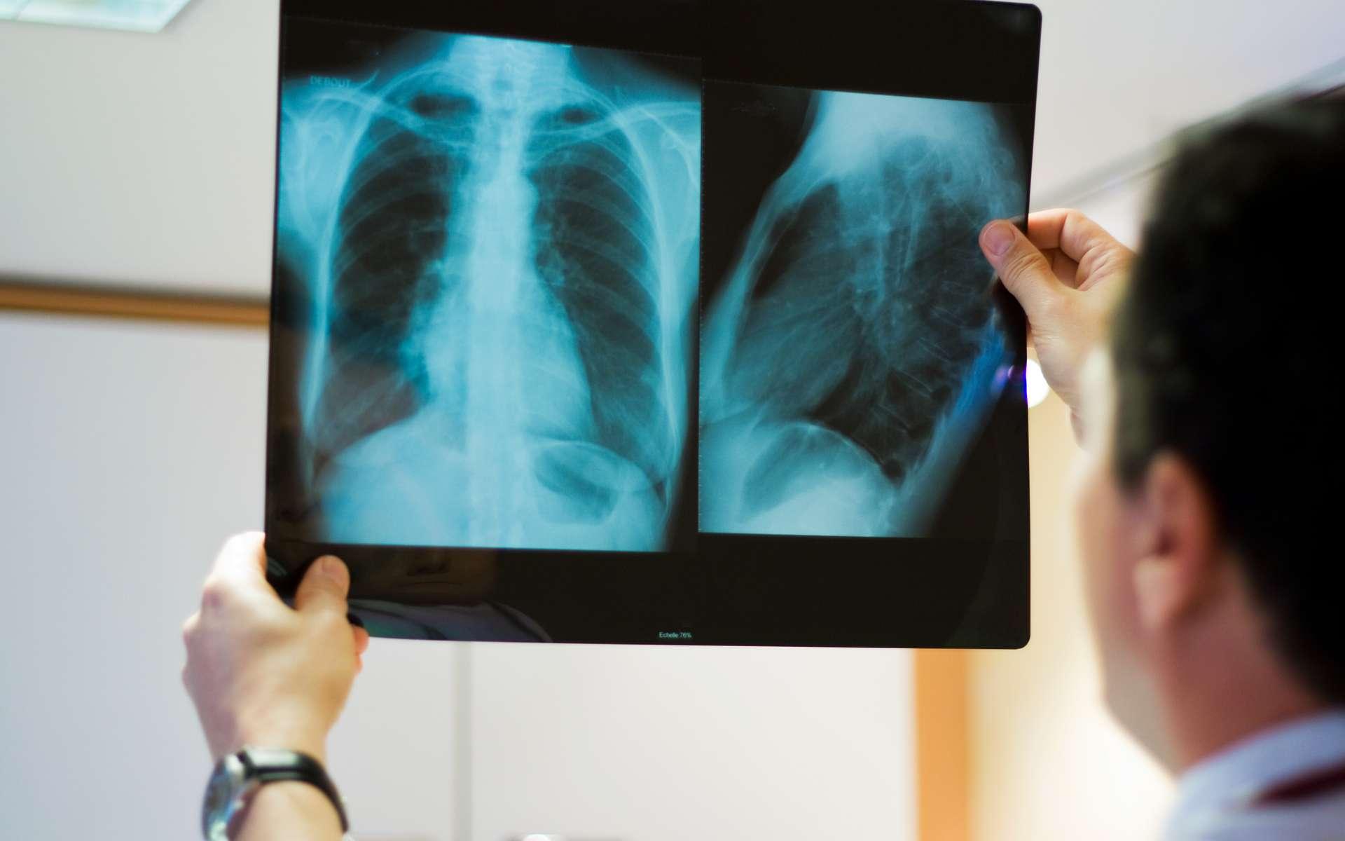 À quel point l'imagerie thoracique est précise dans le diagnostic de la maladie de Covid-19 ? © Chlorophylle, Adobe Stock