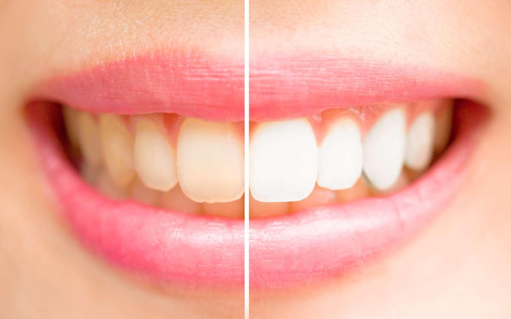Des dents plus blanches sans traitement, c'est possible. © jayzynism, Fotolia