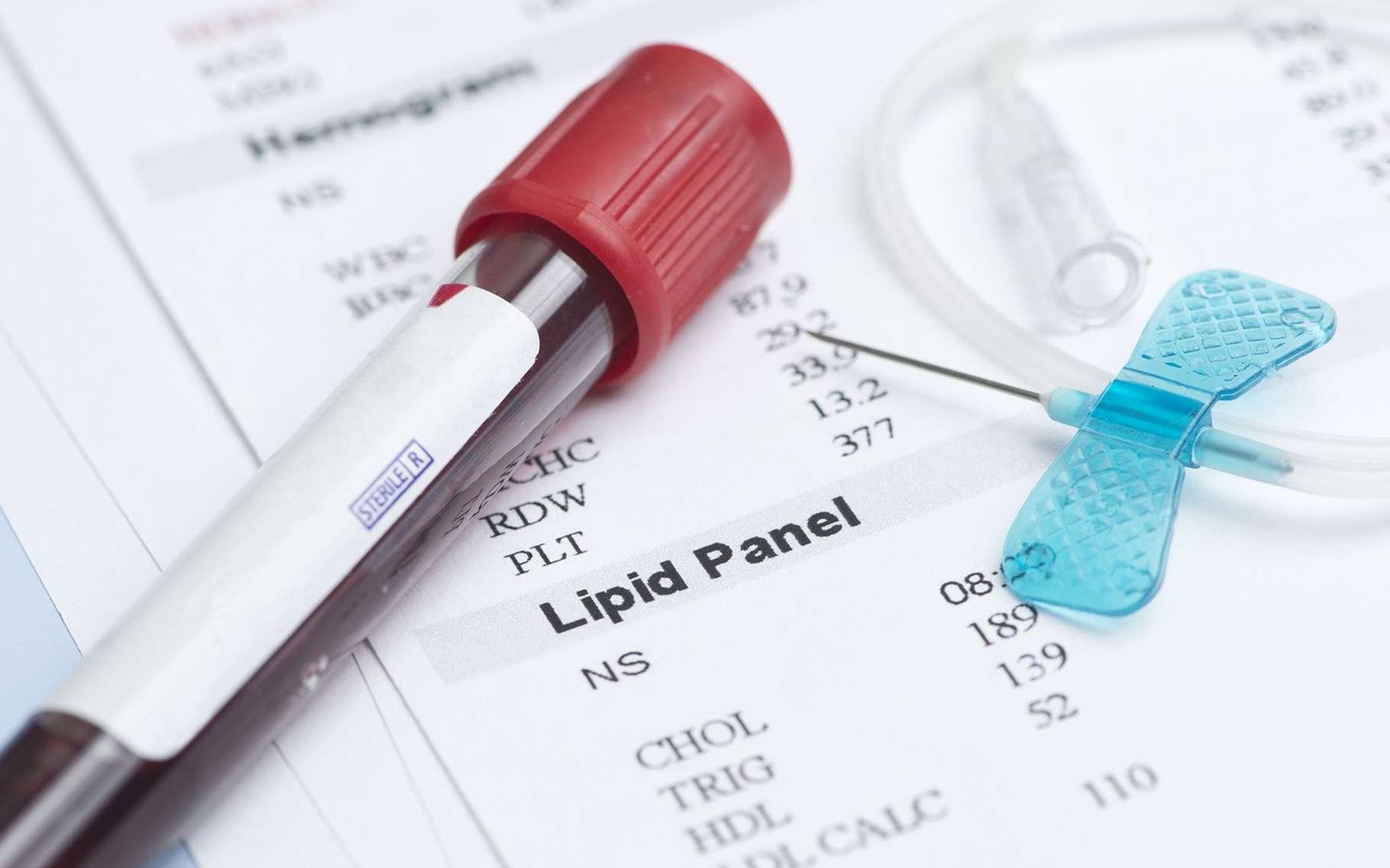 Les analyses sanguines permettent de surveiller son taux de cholestérol, le « bon » et le « mauvais ». © Sherry Yates Young, Shutterstock