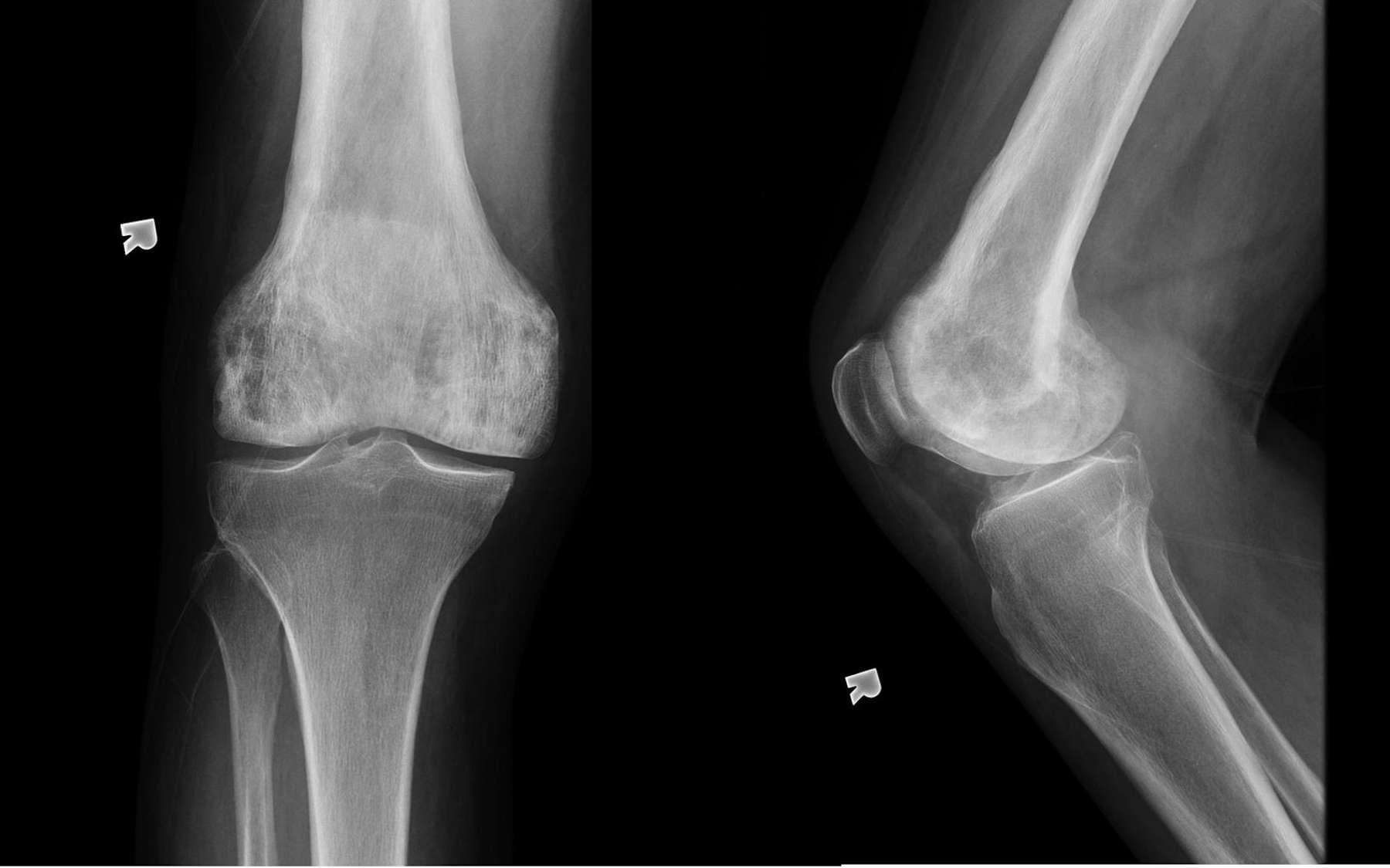 La maladie de Paget se manifeste par des déformations osseuses. © A.Prof Frank Gaillard, Radiopaedia