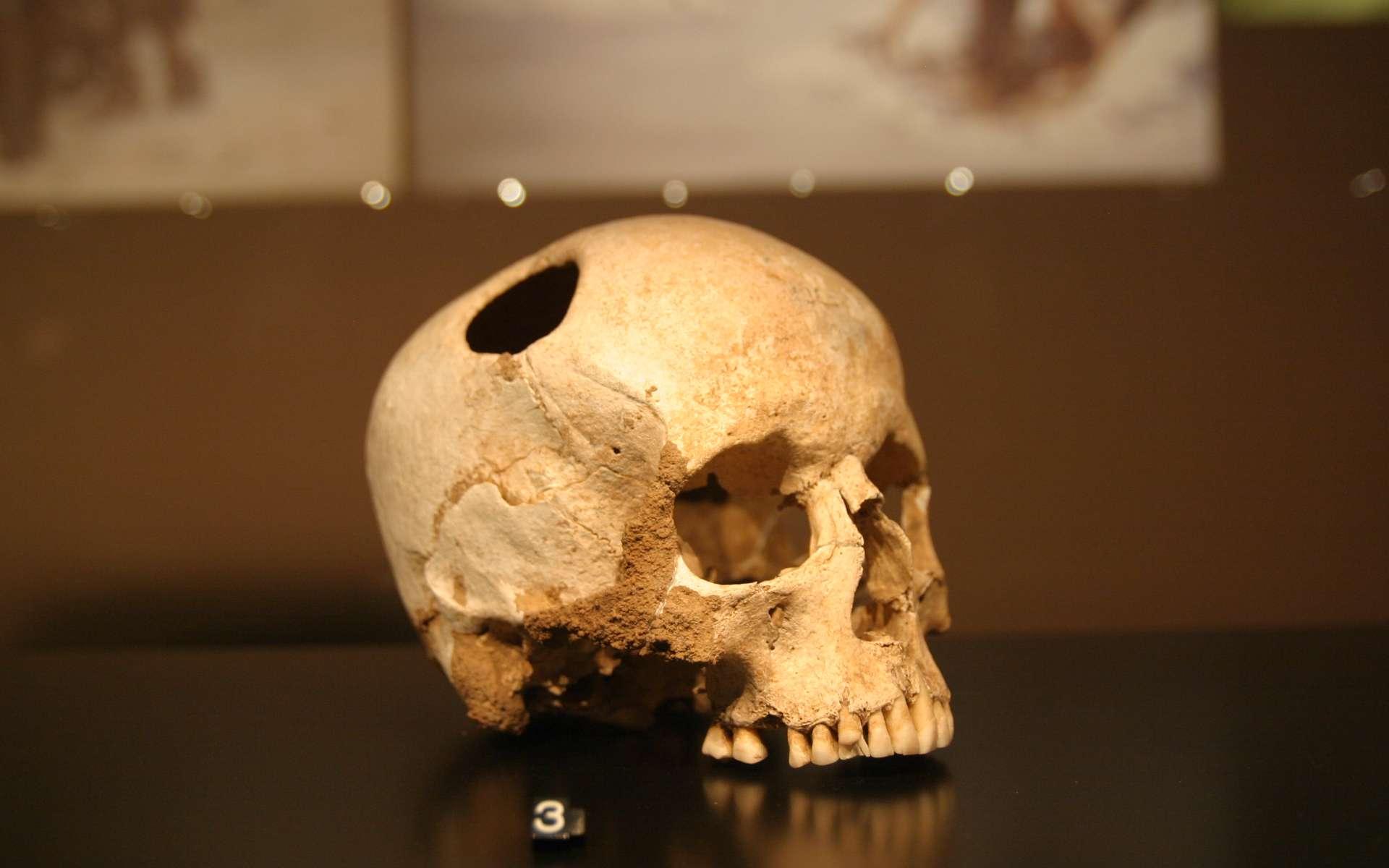 Ce crâne porte les traces d'une trépanation. La fillette ainsi opérée il y a 5.500 ans a survécu à la chirurgie. © Rama, Wikipédia, cc by sa 2.0