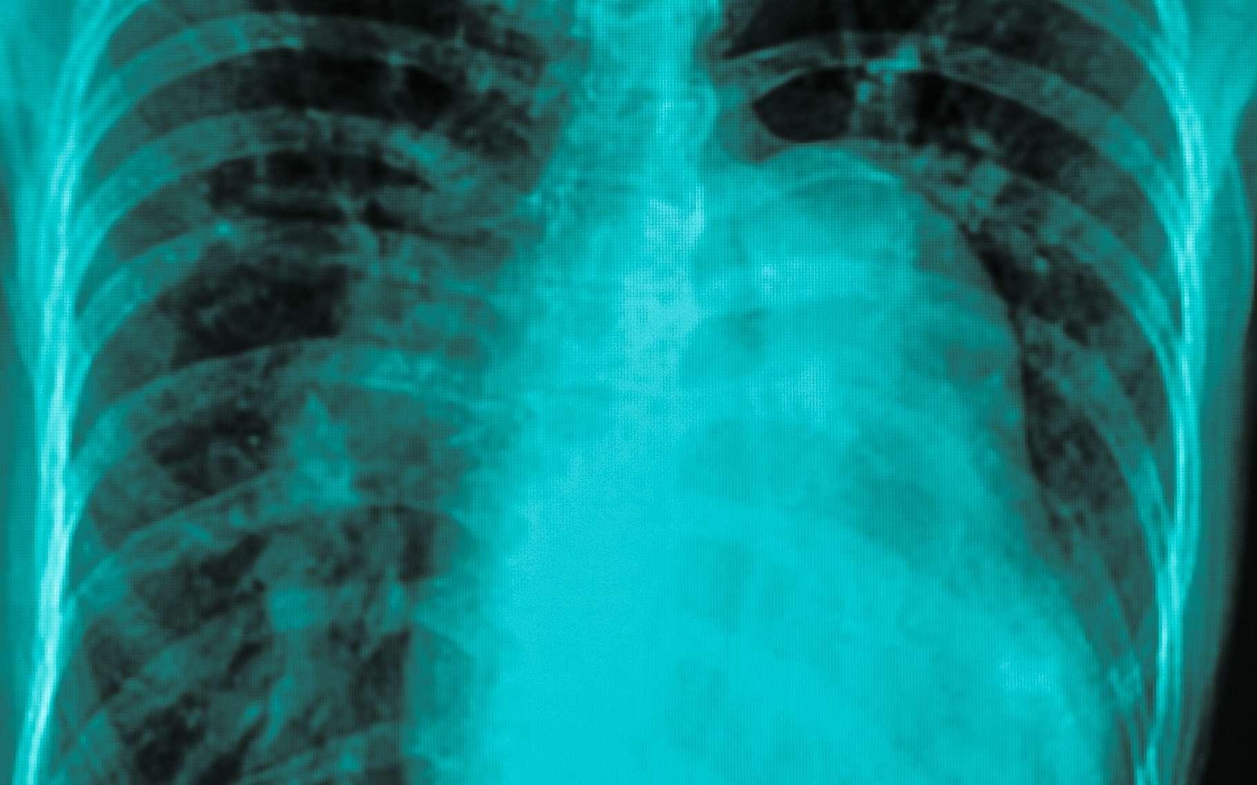Une hypertrophie cardiaque congénitale peut favoriser la mort subite chez des sujets jeunes. © Tewan Banditrukkanka, Shutterstock